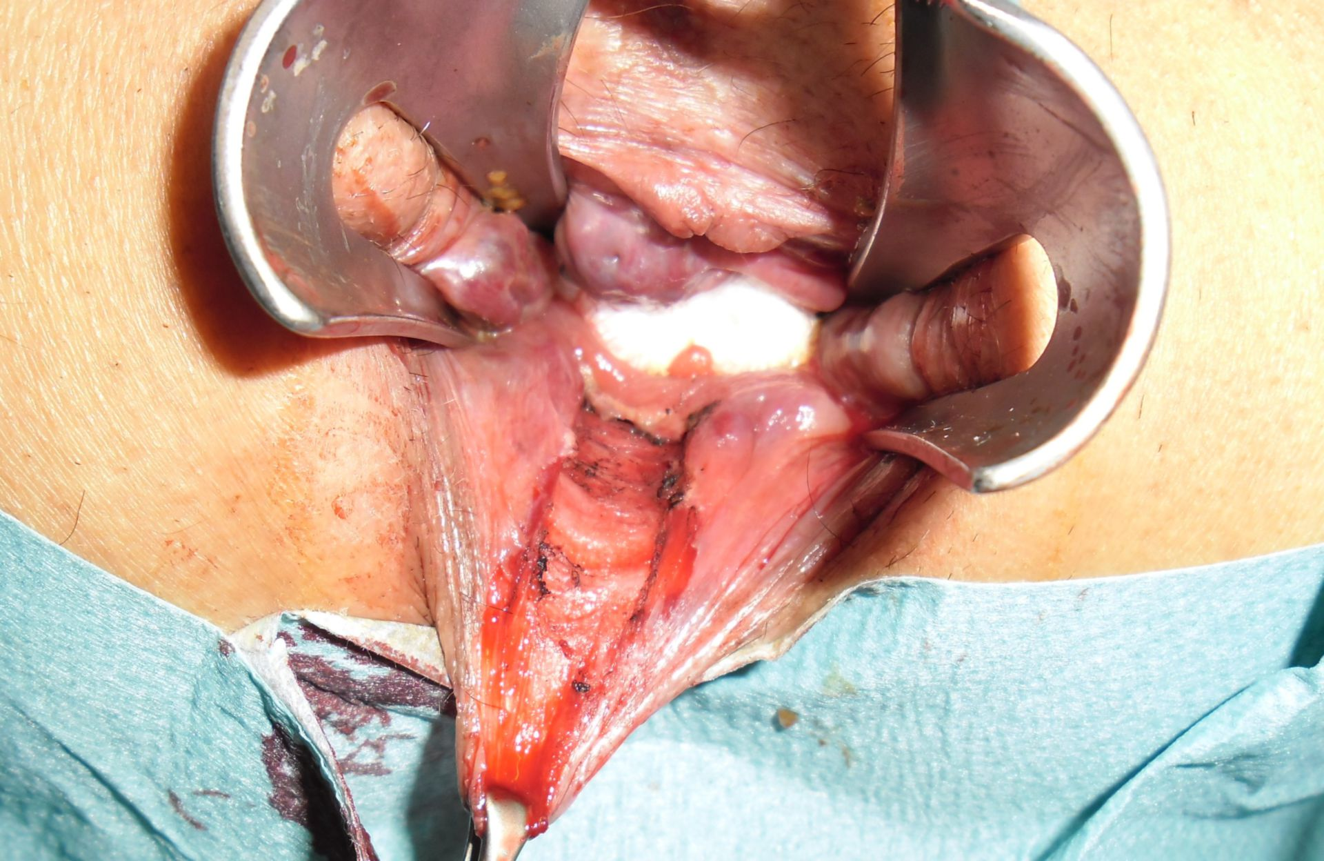 State after Milligan-Morgan hemorrhoidectomy