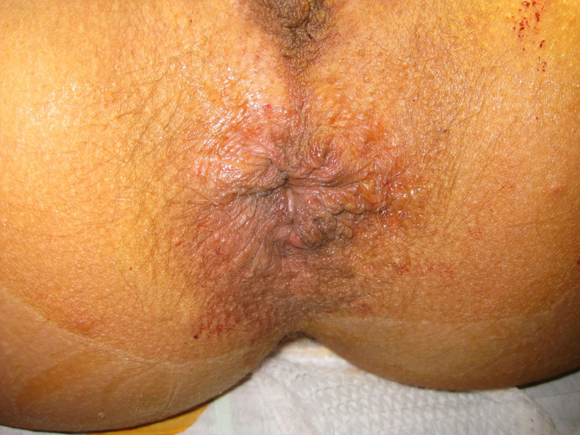 Cirugía de hemorroides, técnica de Longo
