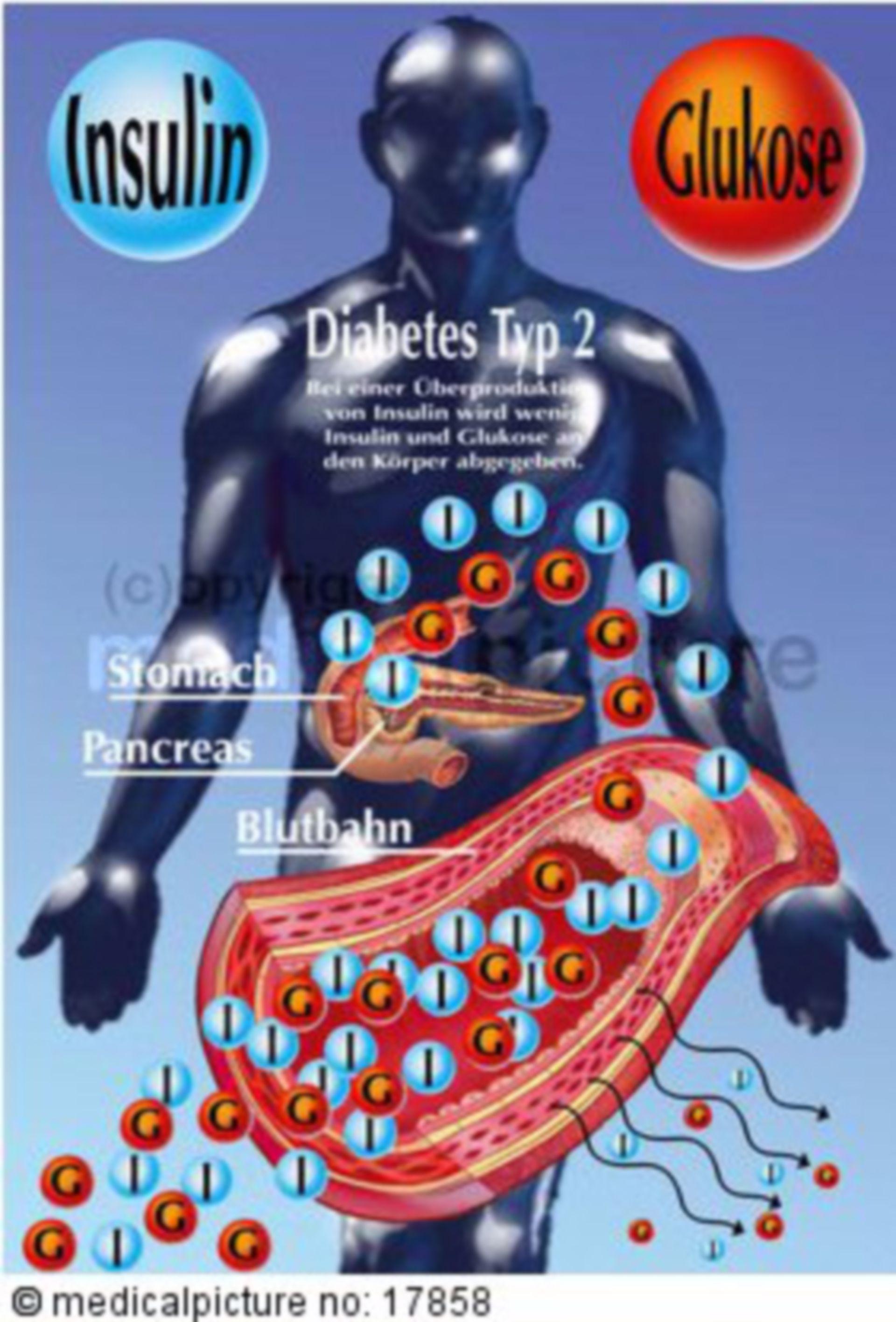 Insulin secretion of people with type II diabetes