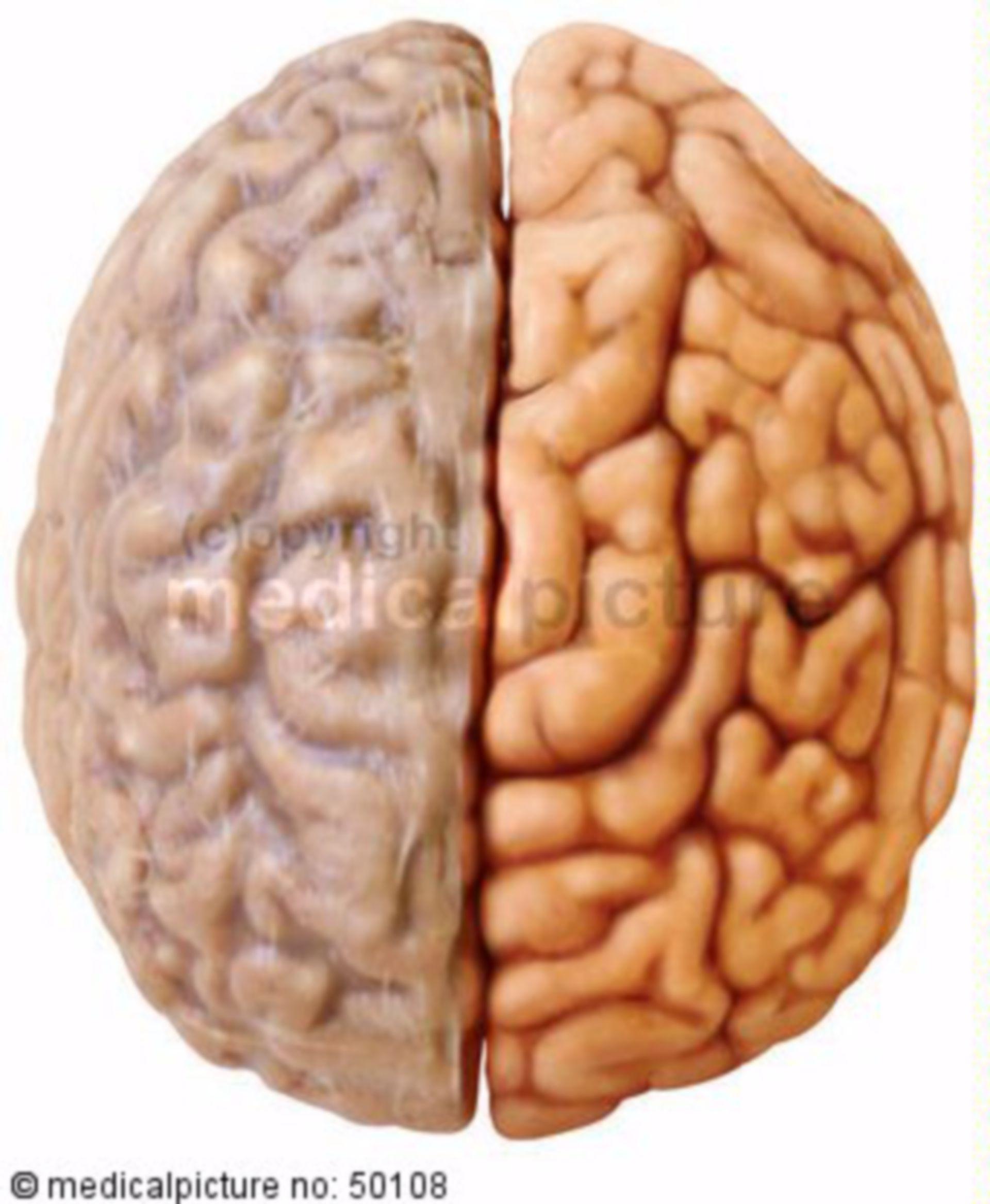 Brain with meninx