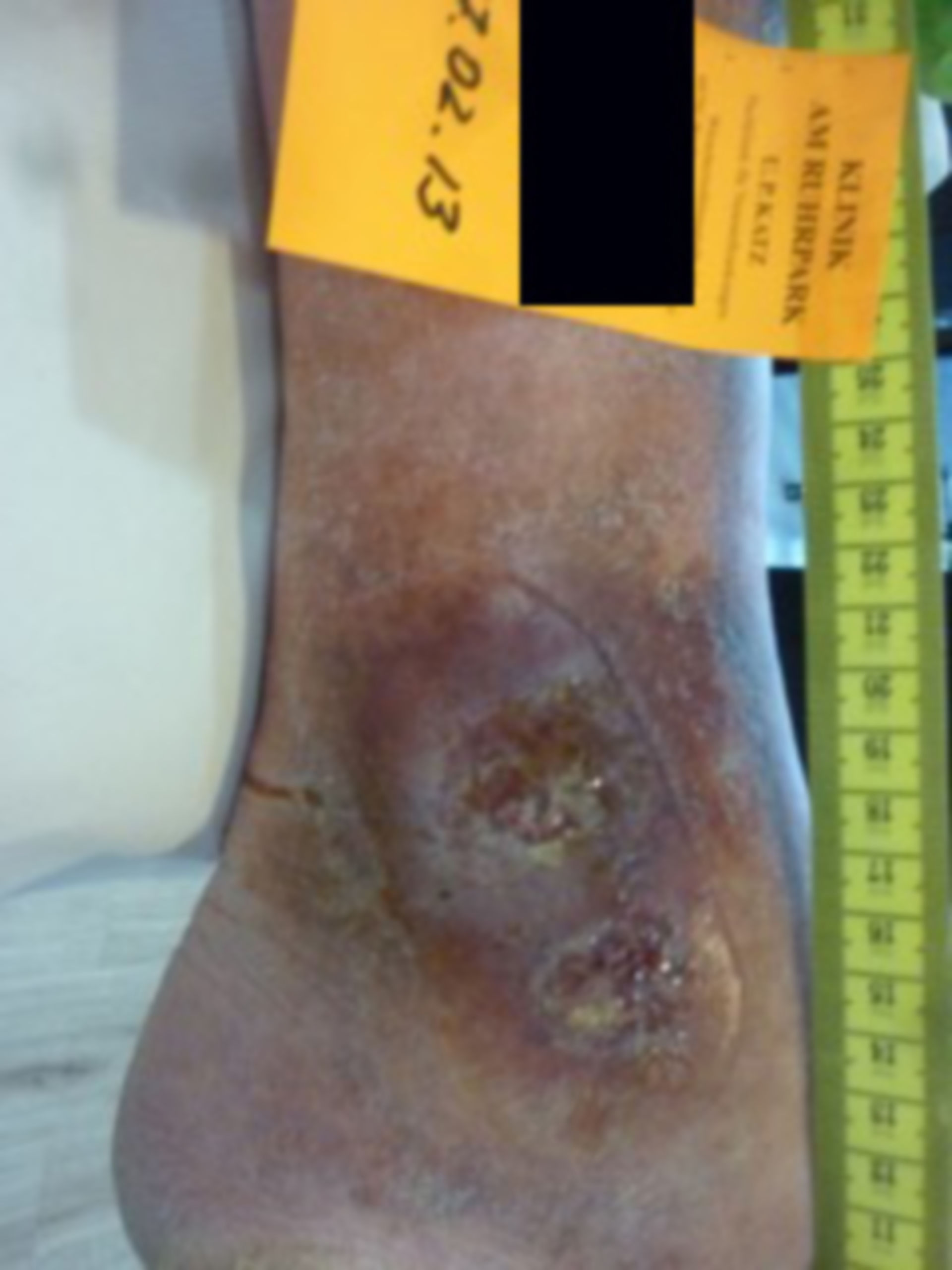 Erysipelas and ulcers (two years open)