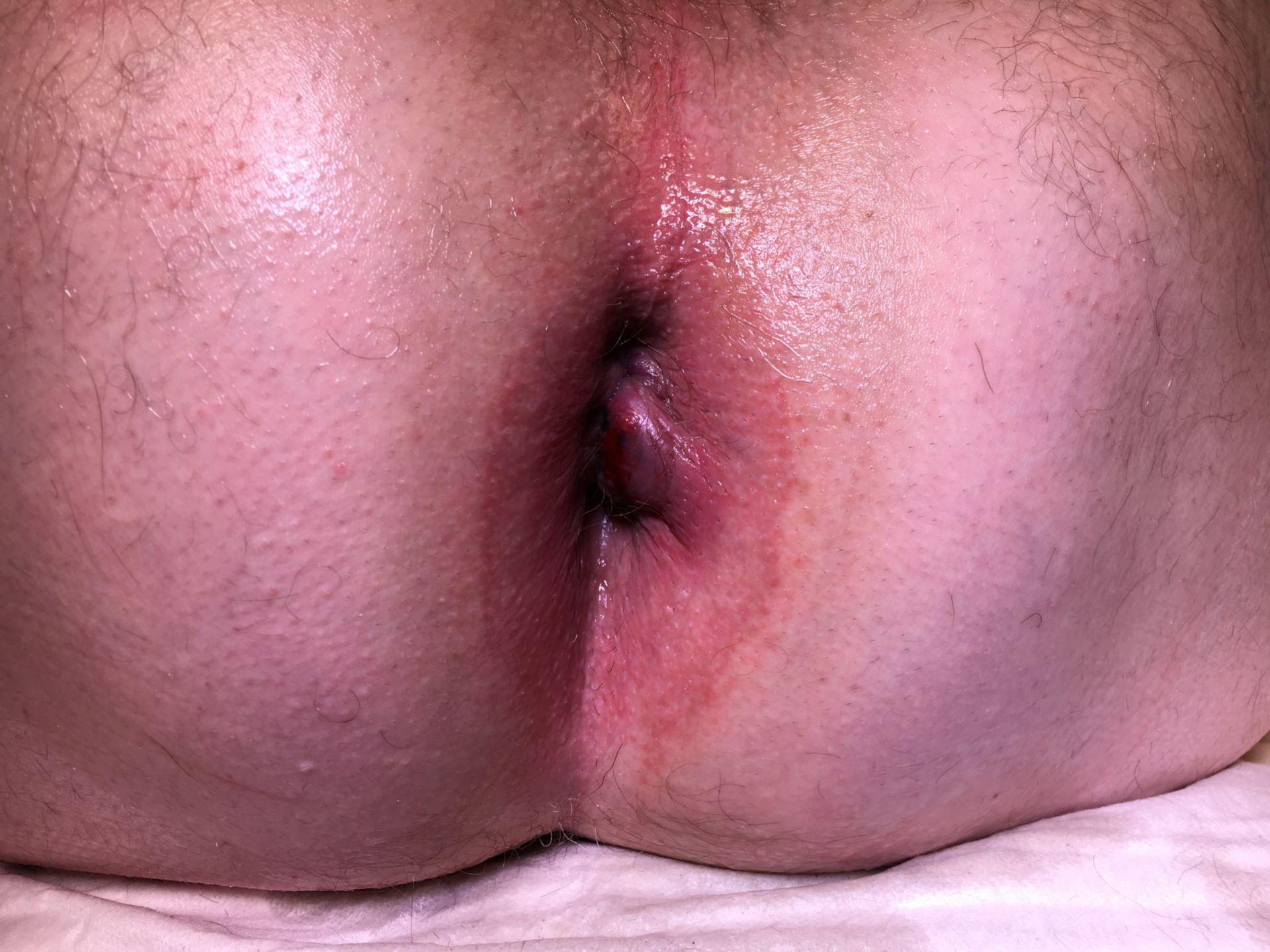 Hämorrhoide oder Analvenenthrombose ?