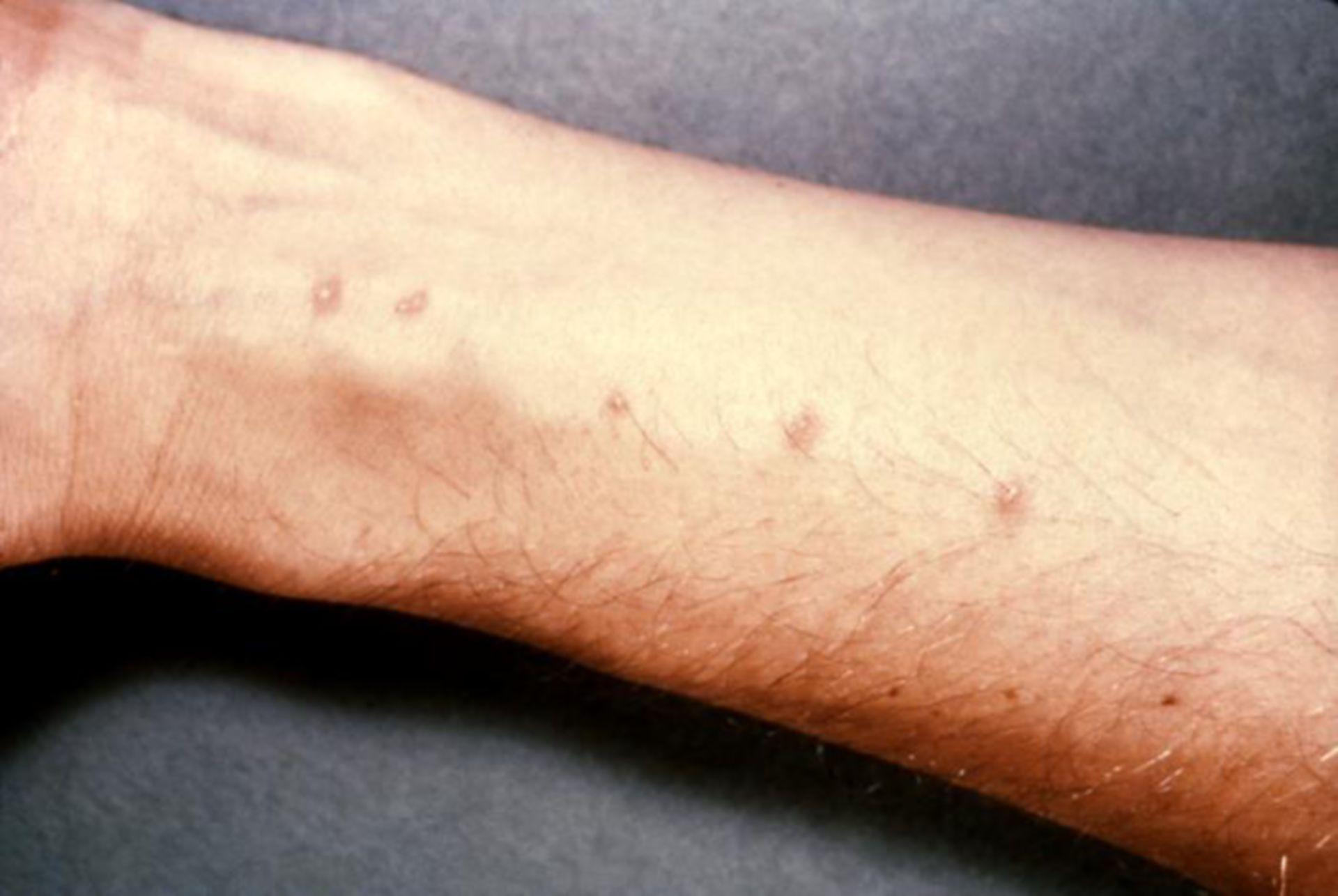 Zerkariendermatitis