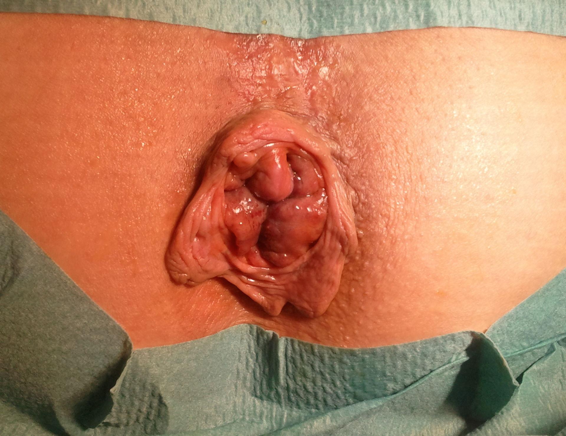 Hemorroids Stage III