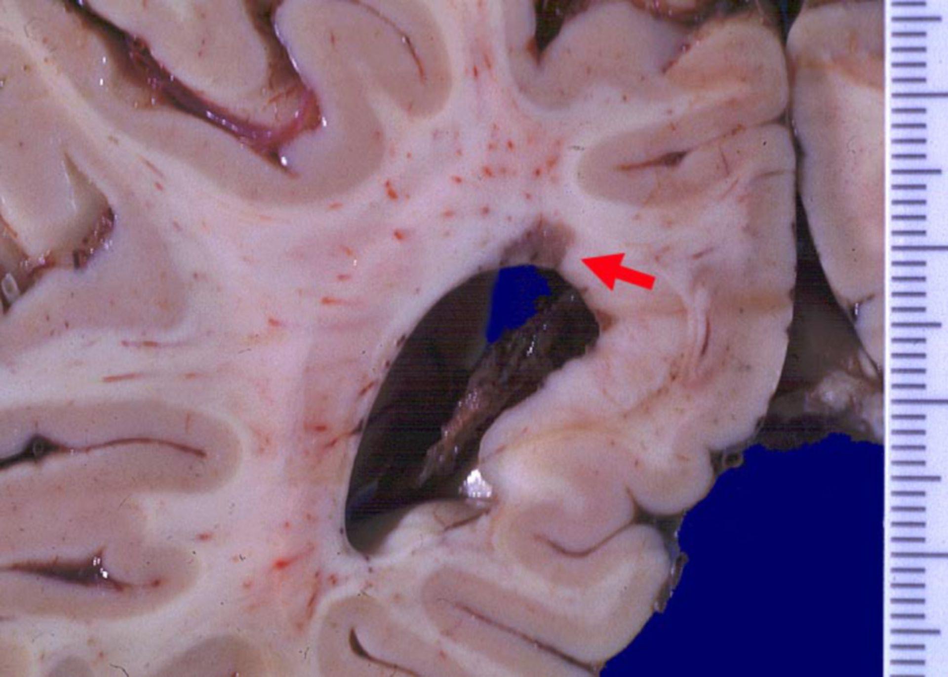 Entmarkungsherd bei multipler Sklerose (MS)