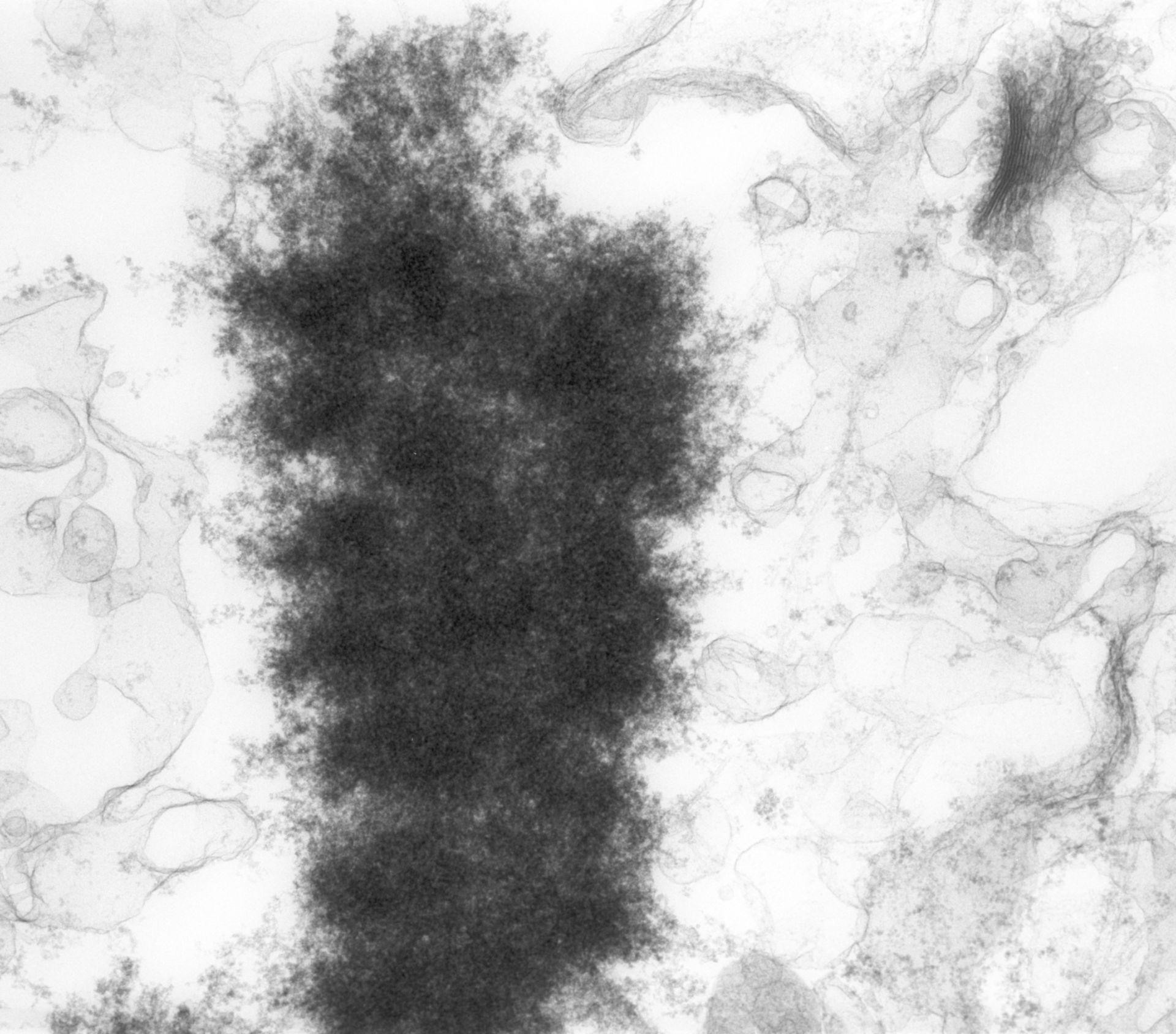 Haemanthus katharinae (Nuclear chromosome) - CIL:11904