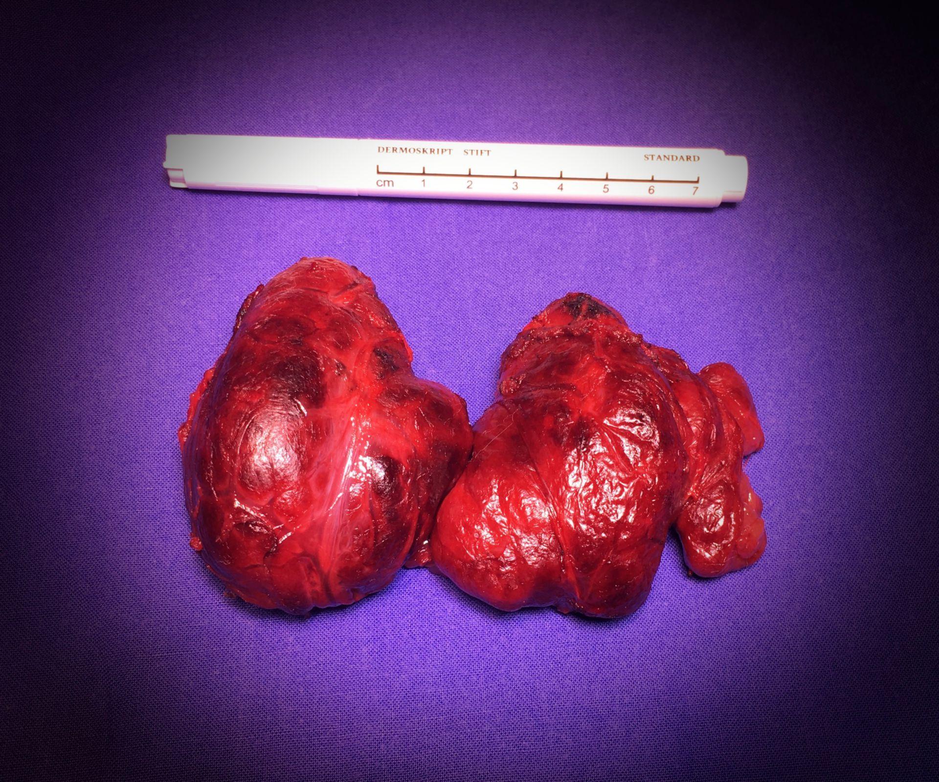Tiroidectomia totale per struma benigno