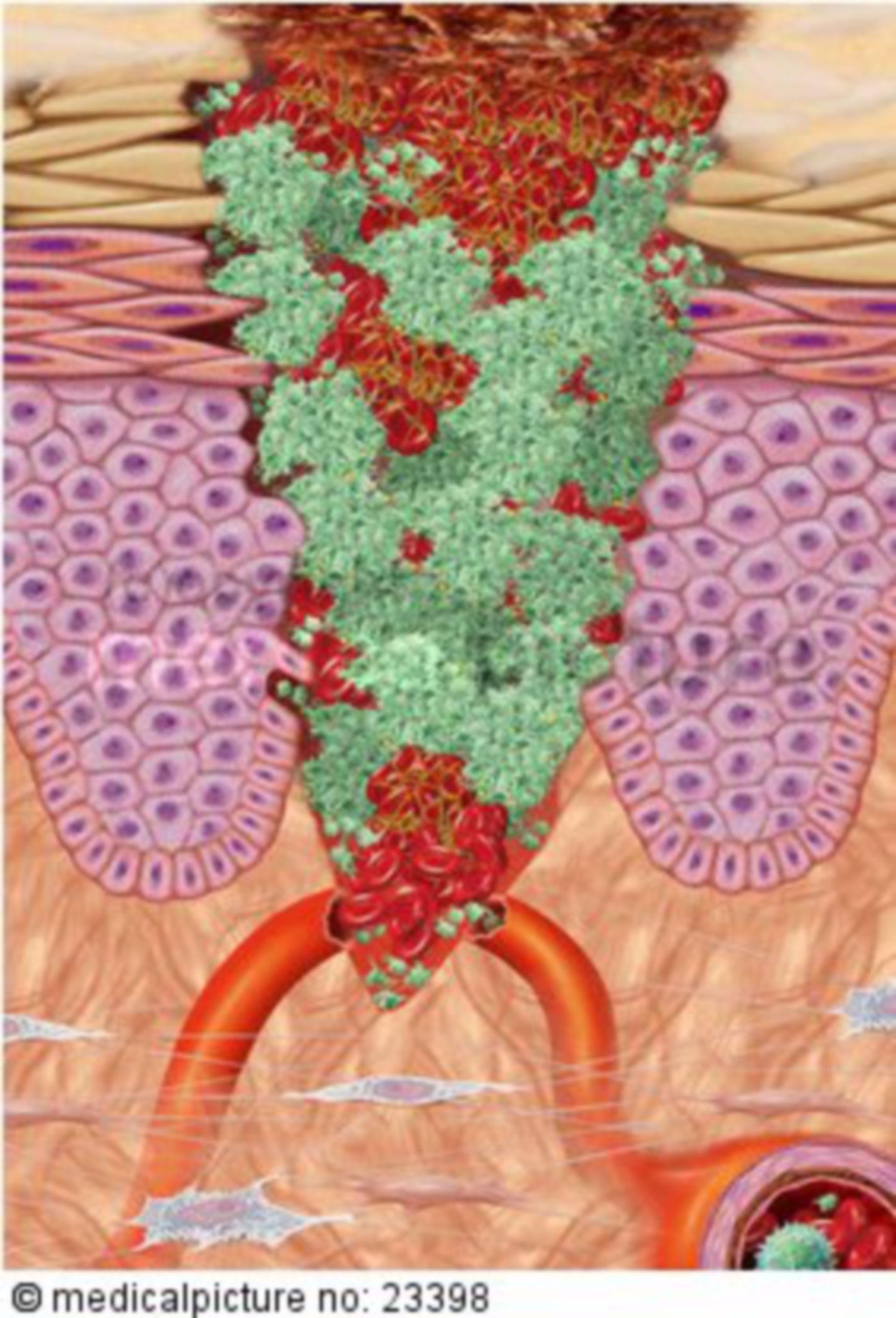 Documentation Tissue Repair 1/4  - Blood Clotting