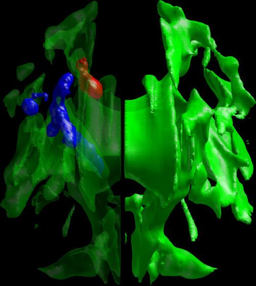 Extrem späte und extrem frühe Chronotypen leiten Signale in der weißen Hirnsubstanz in einigen Arealen (blau und rot markiert) unterschiedlich stark © Forschungszentrum Jülich