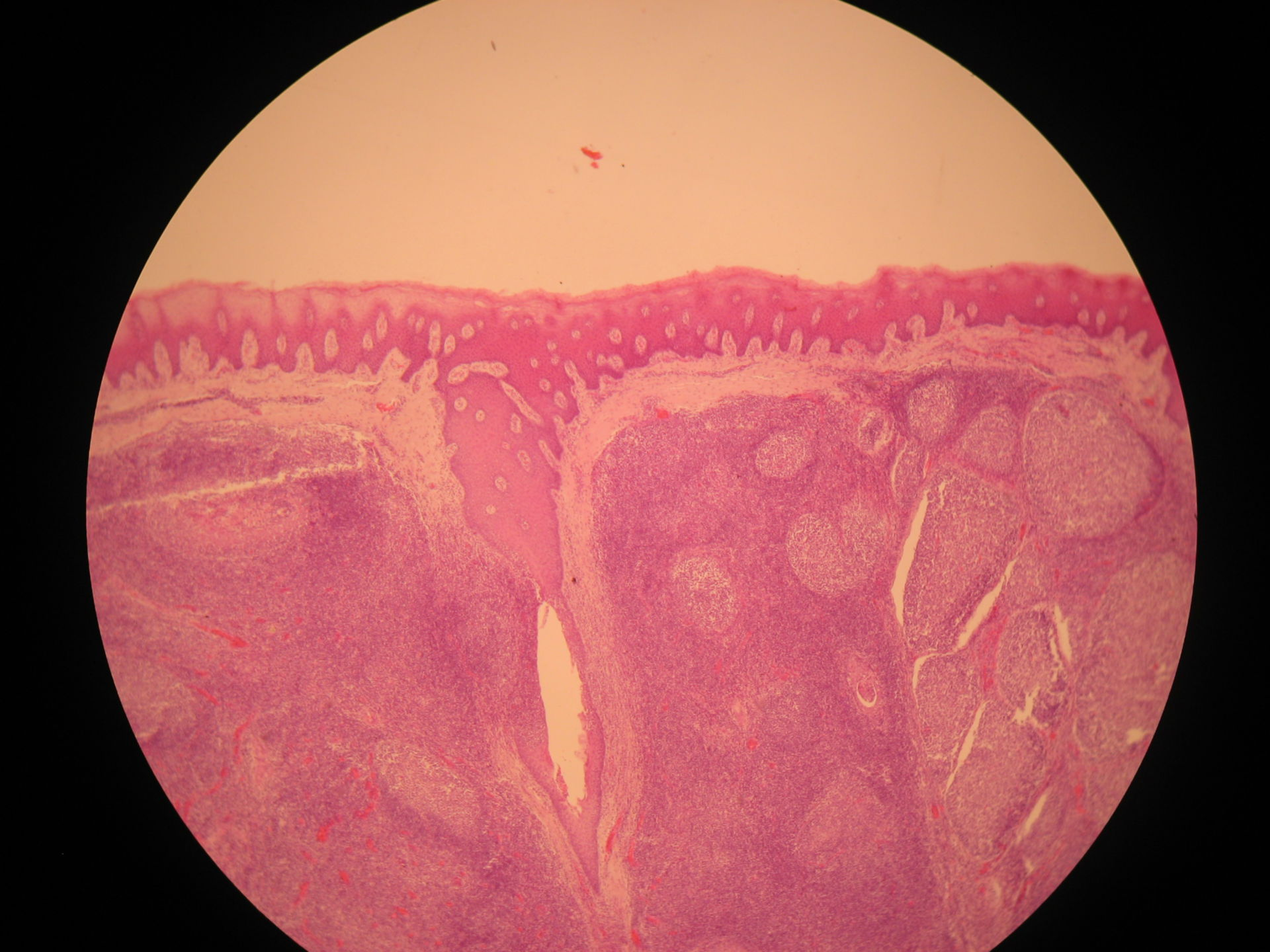 Veterinary Medicine: Palatine Tonsil of a Cattle(2) - Epithelium