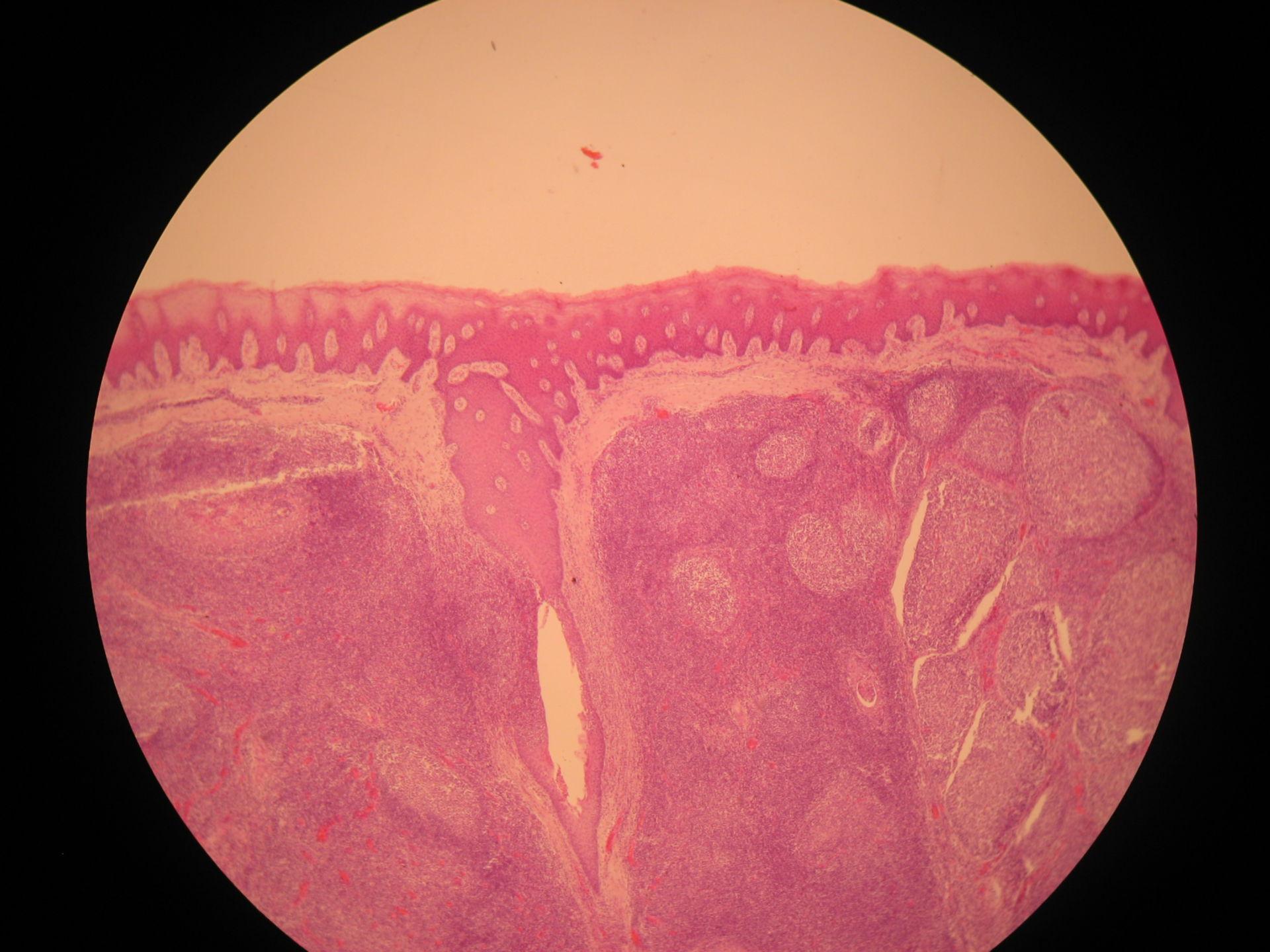 Gaumenmandel des Rindes (2) - Epithel