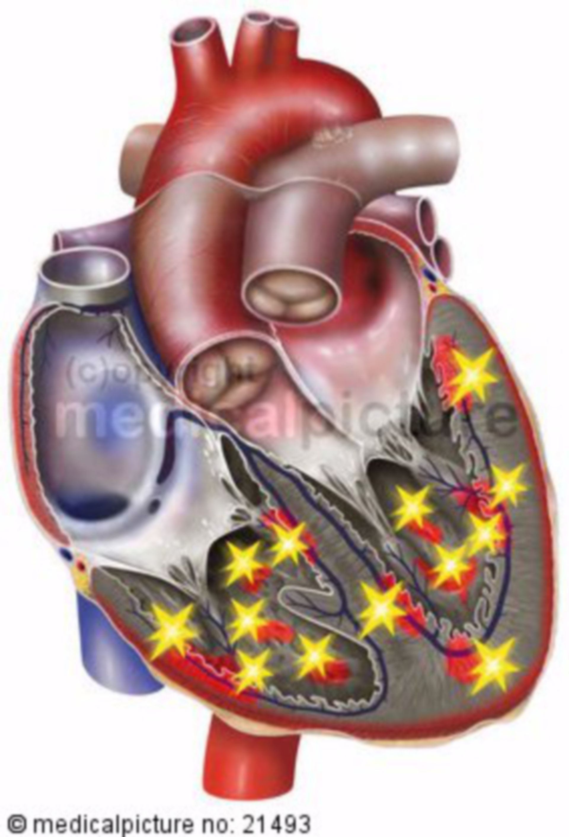 Fibrillazione ventricolare nel cuore