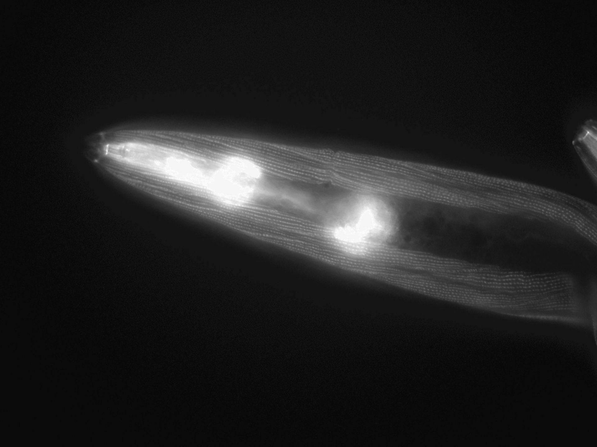 Caenorhabditis elegans (filamento actina) - CIL:1045
