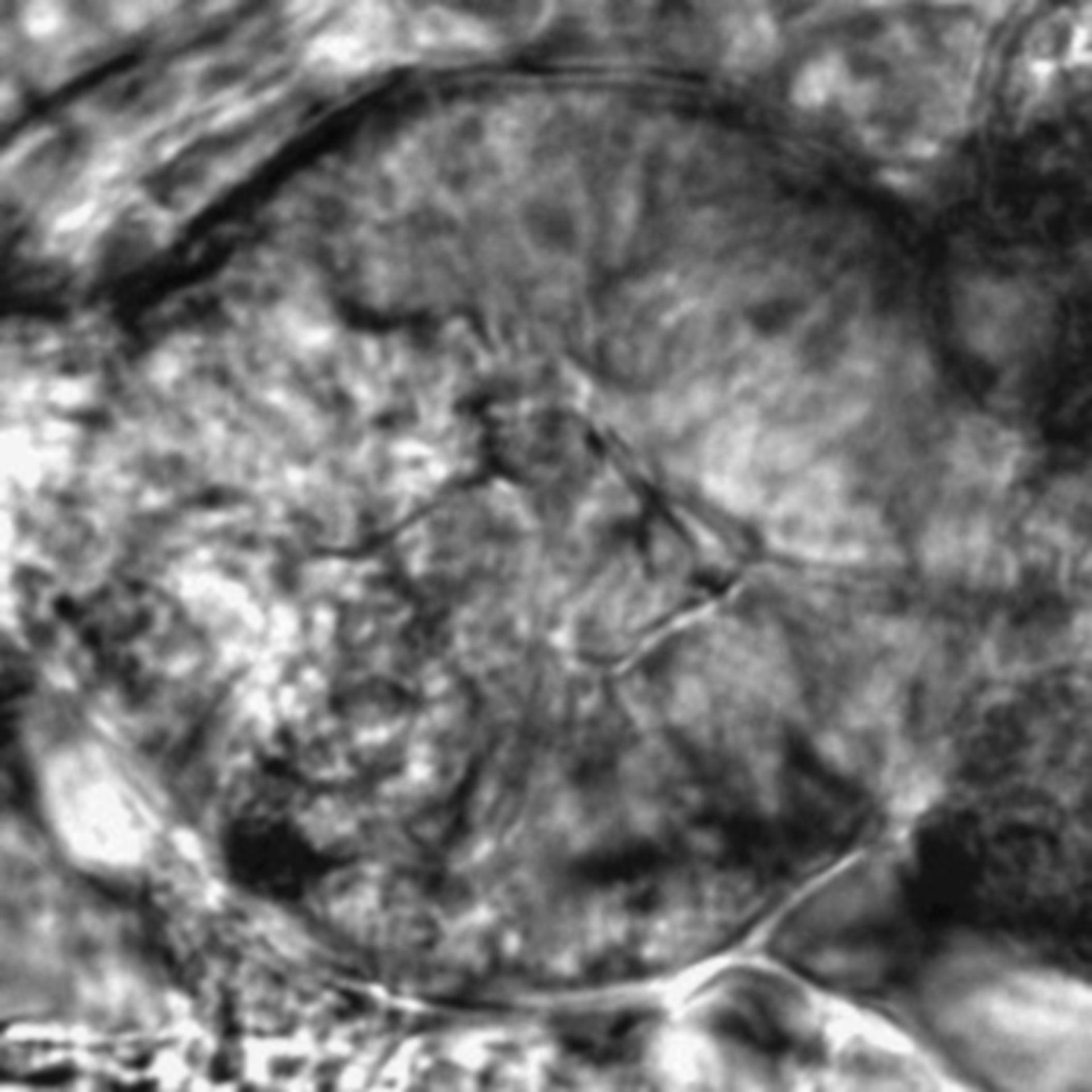 Caenorhabditis elegans - CIL:2575