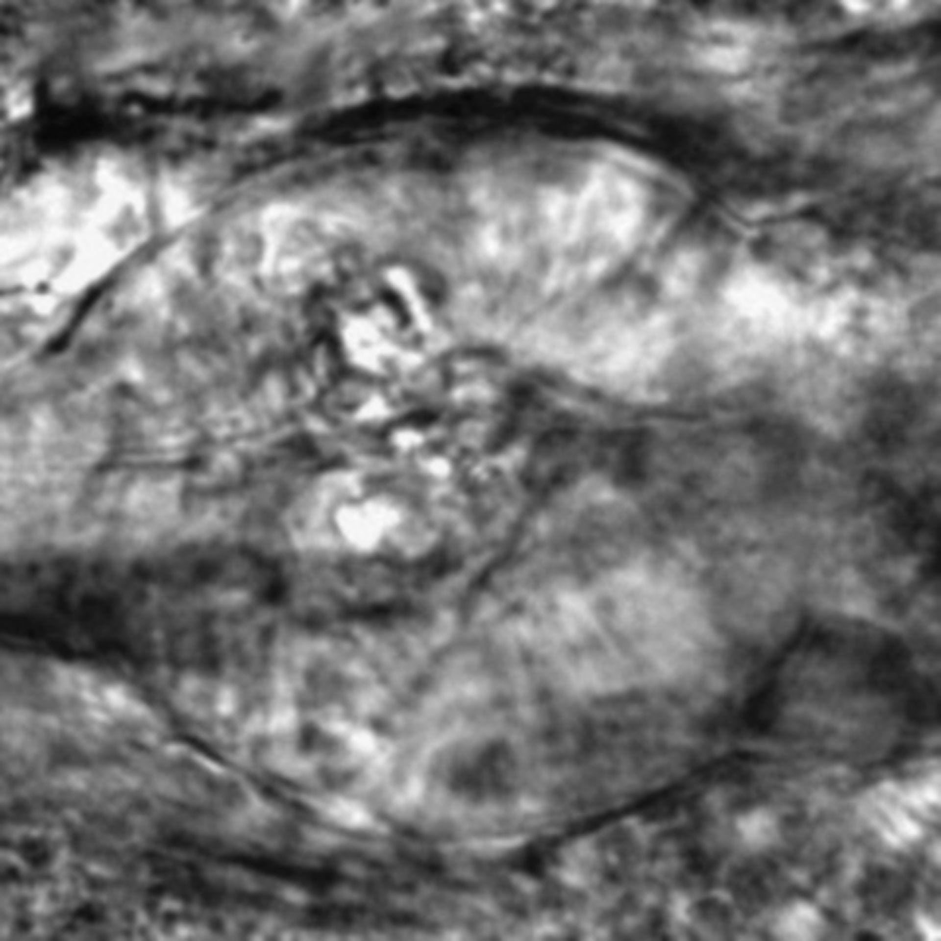 Caenorhabditis elegans - CIL:2801