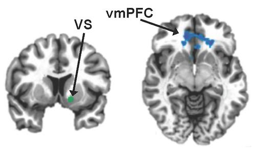 vmPFC-VS improved