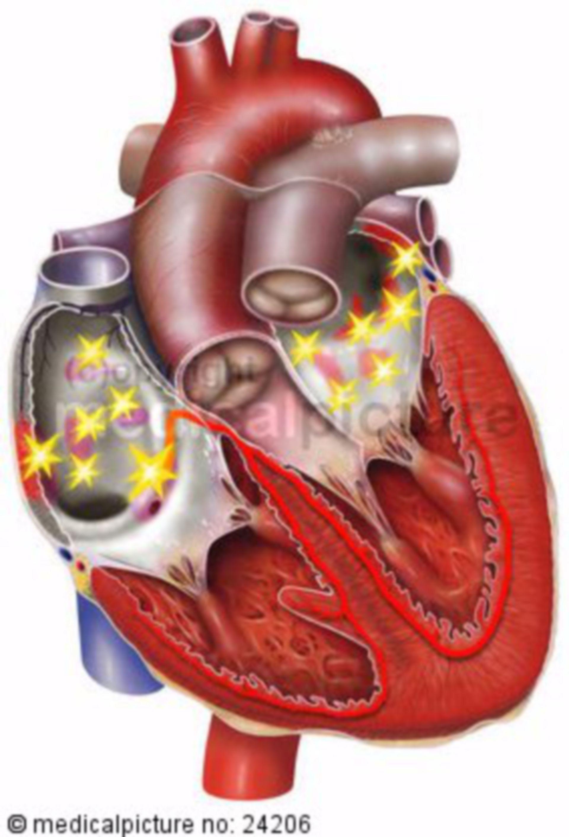 Fibrillazione atriale del cuore