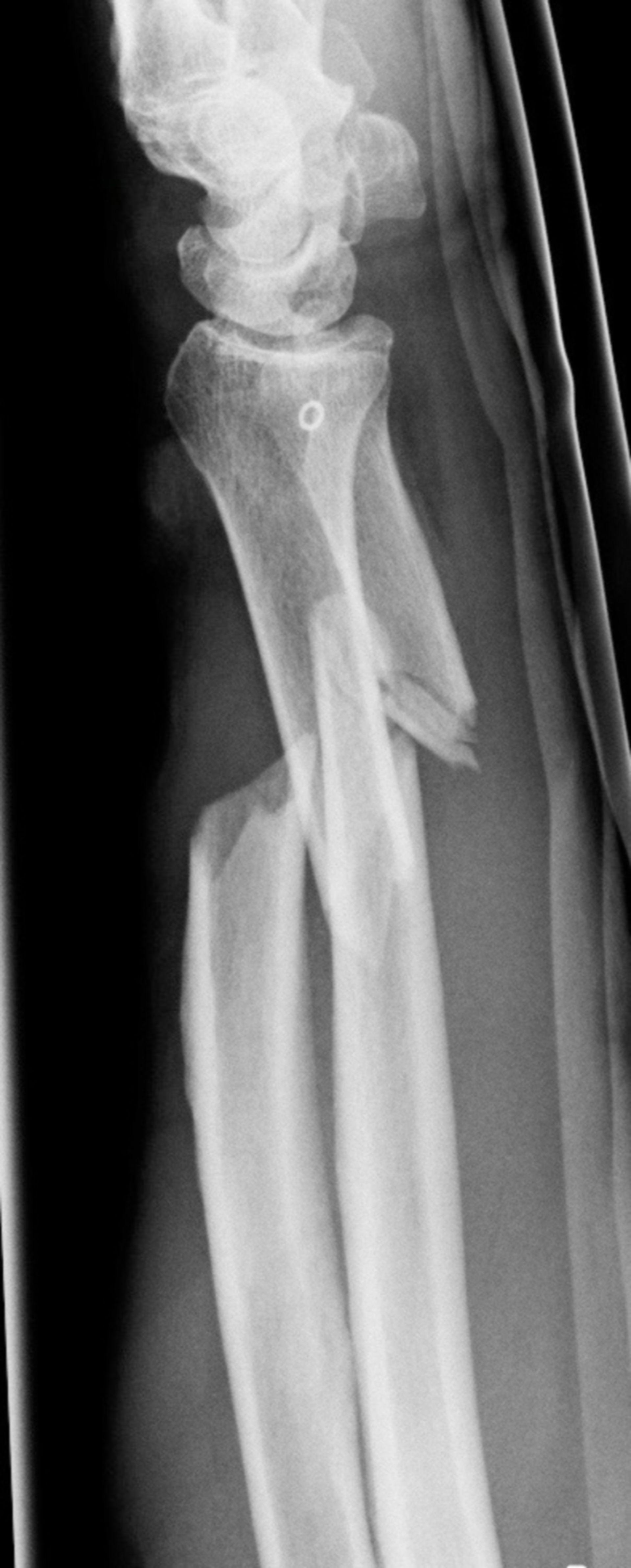 Röntgen des distalen Unterarmes von lateral mit Darstellung einer kompletten Unterarmfraktur