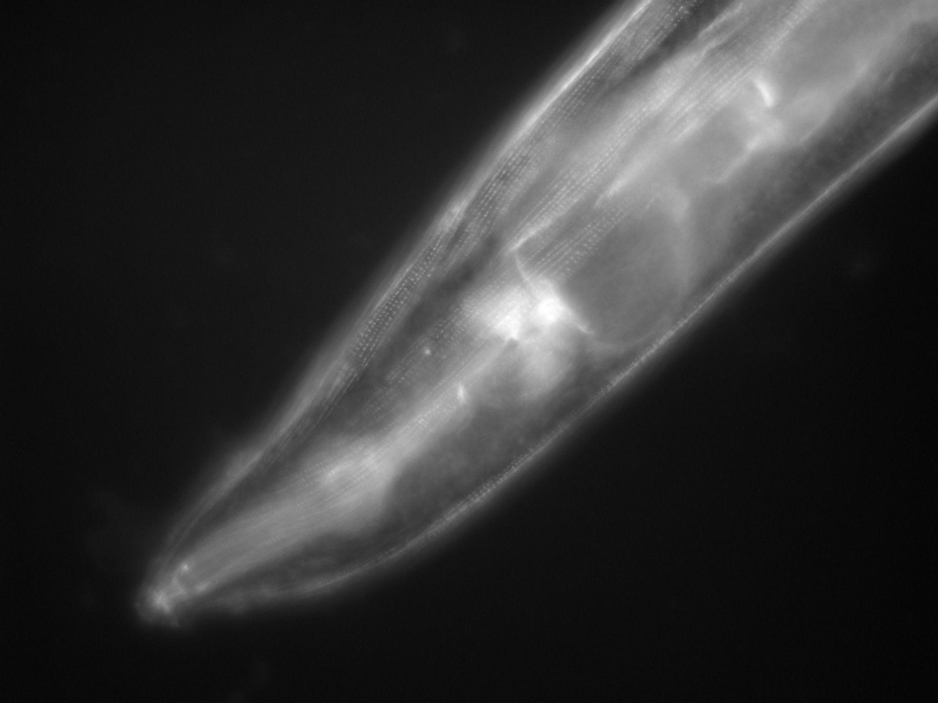 Caenorhabditis elegans (Actin filament) - CIL:1133