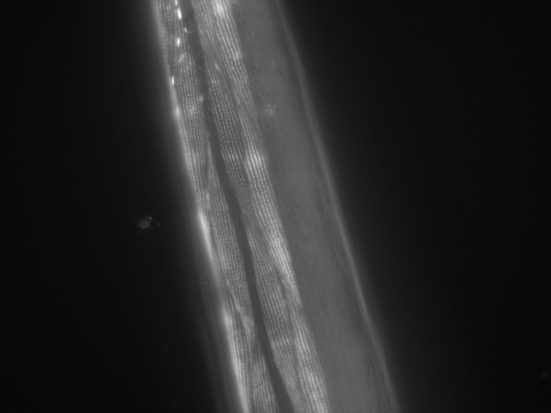 Caenorhabditis elegans (Actin filament) - CIL:1012