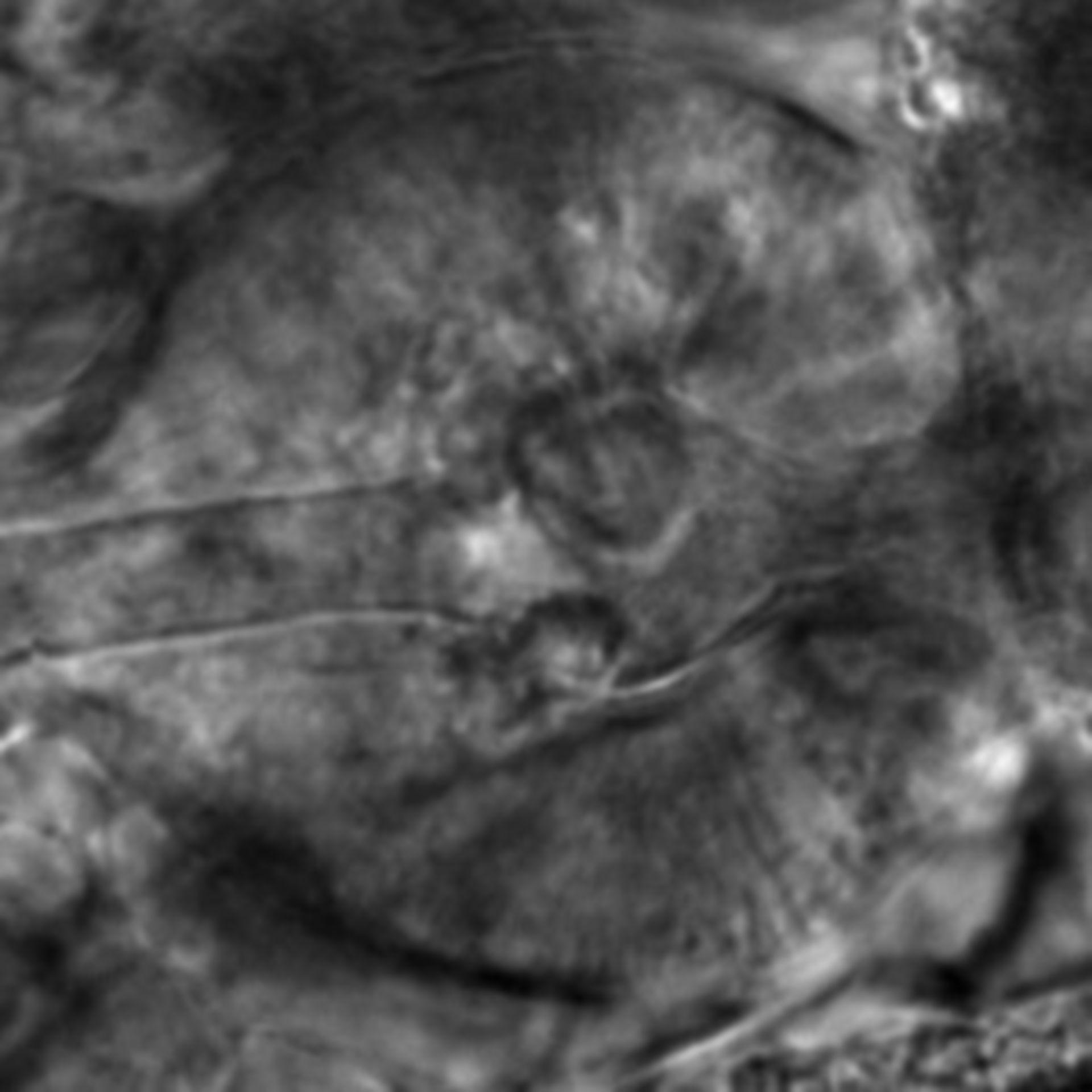 Caenorhabditis elegans - CIL:2618