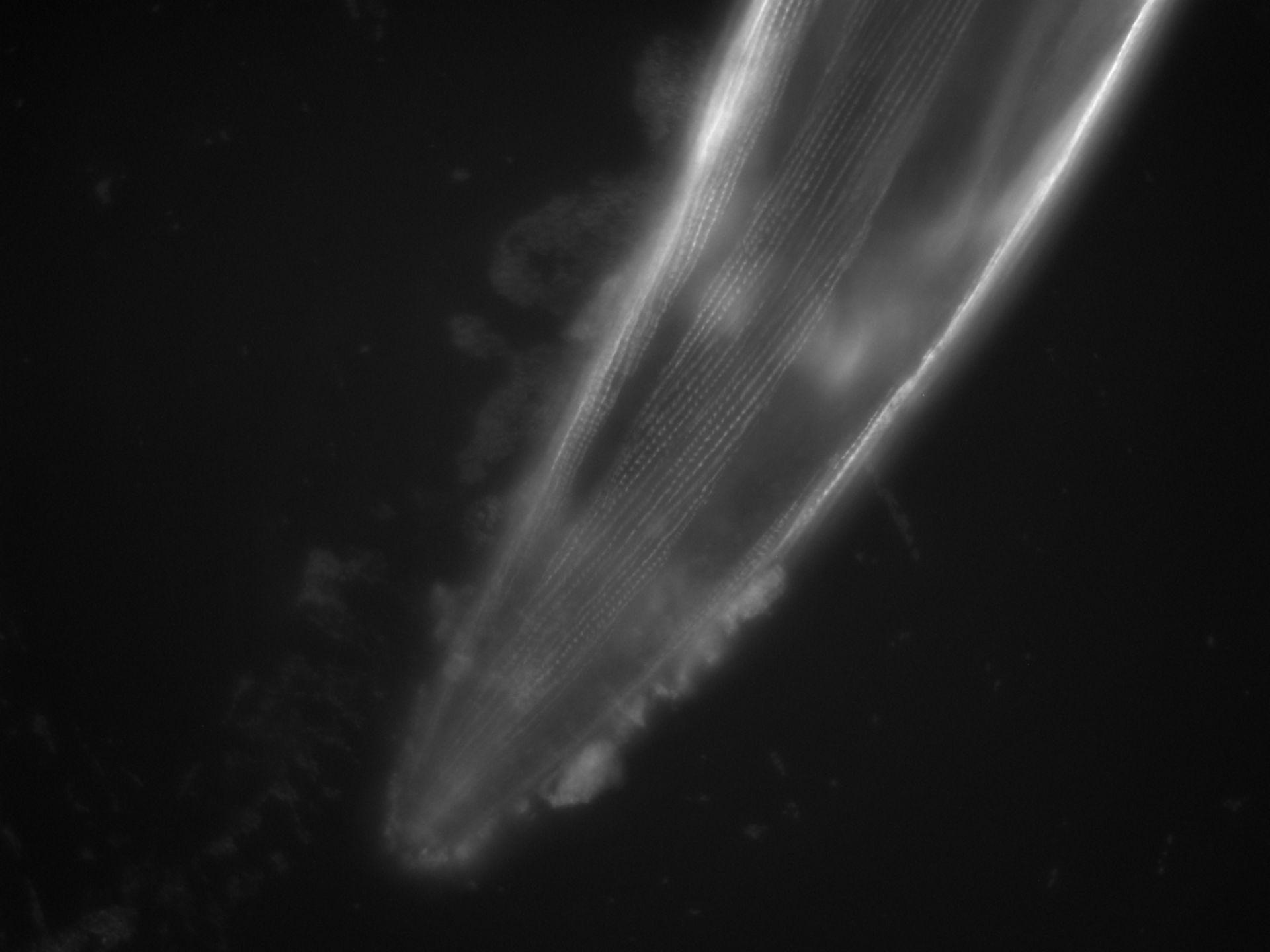 Caenorhabditis elegans (Actin filament) - CIL:1112