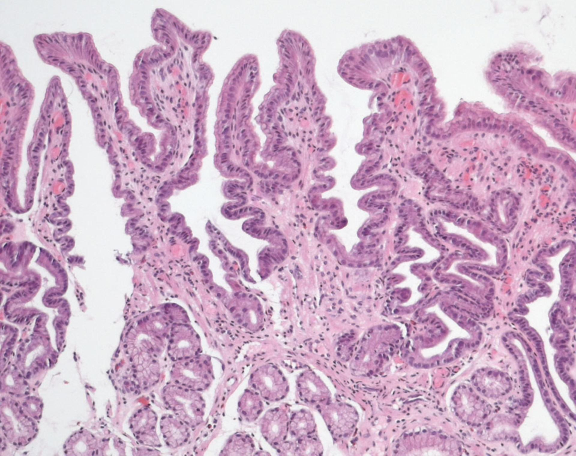 Gastropatía reactiva química (gastritis tipo C)