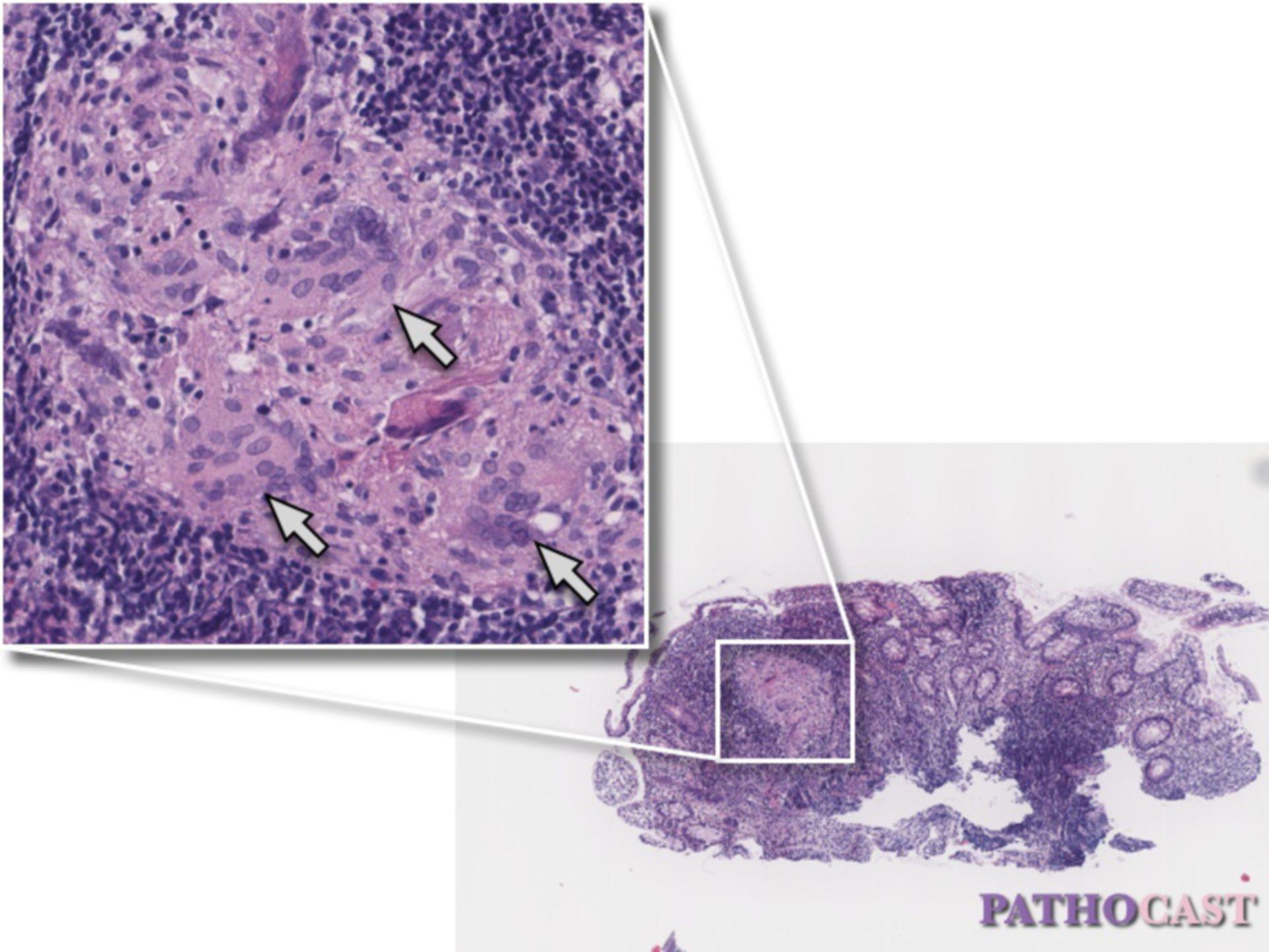 Granuloma cellulare epitelioide nella malattia di Crohn
