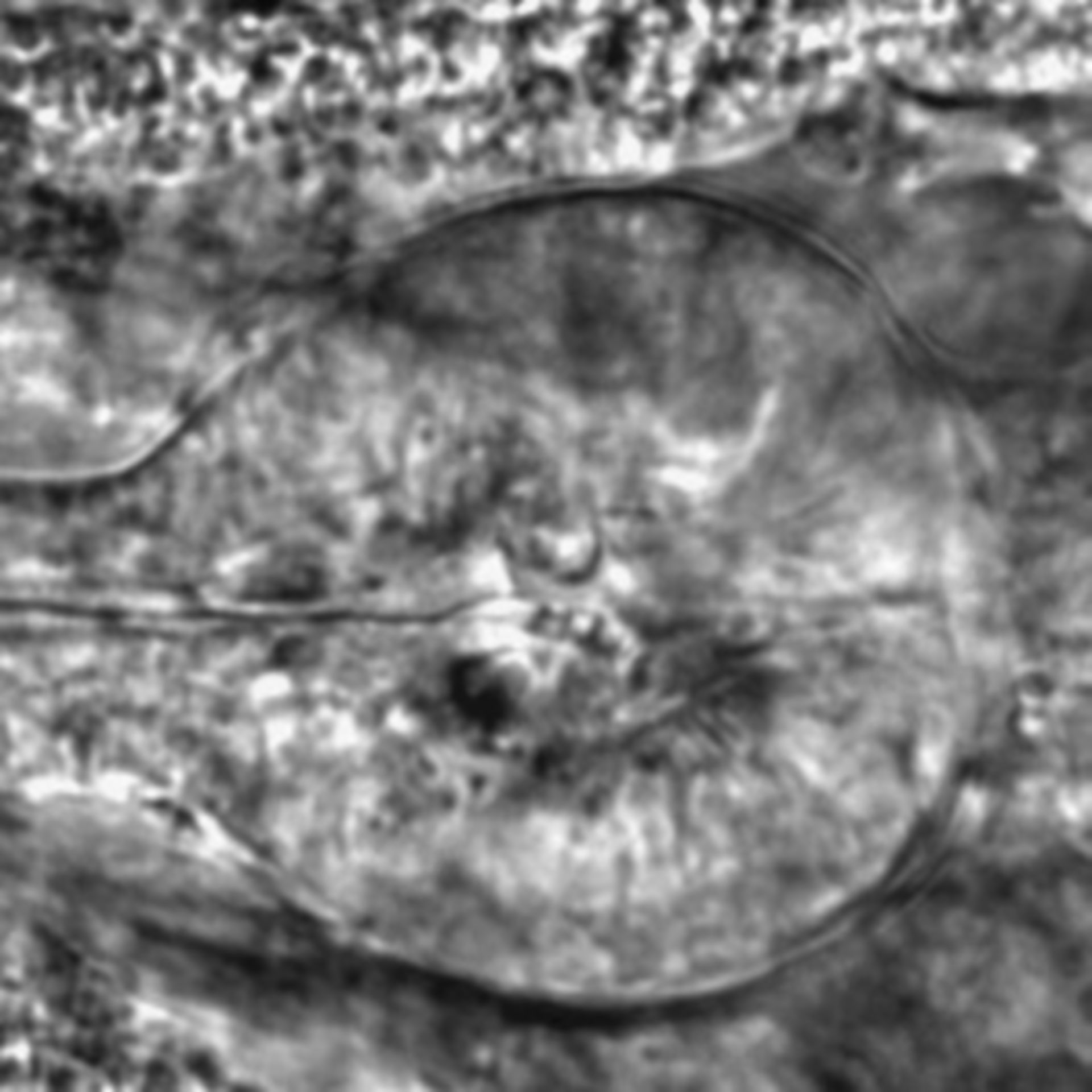 Caenorhabditis elegans - CIL:2713