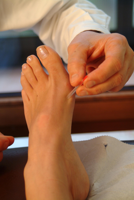 Agopuntura al piede