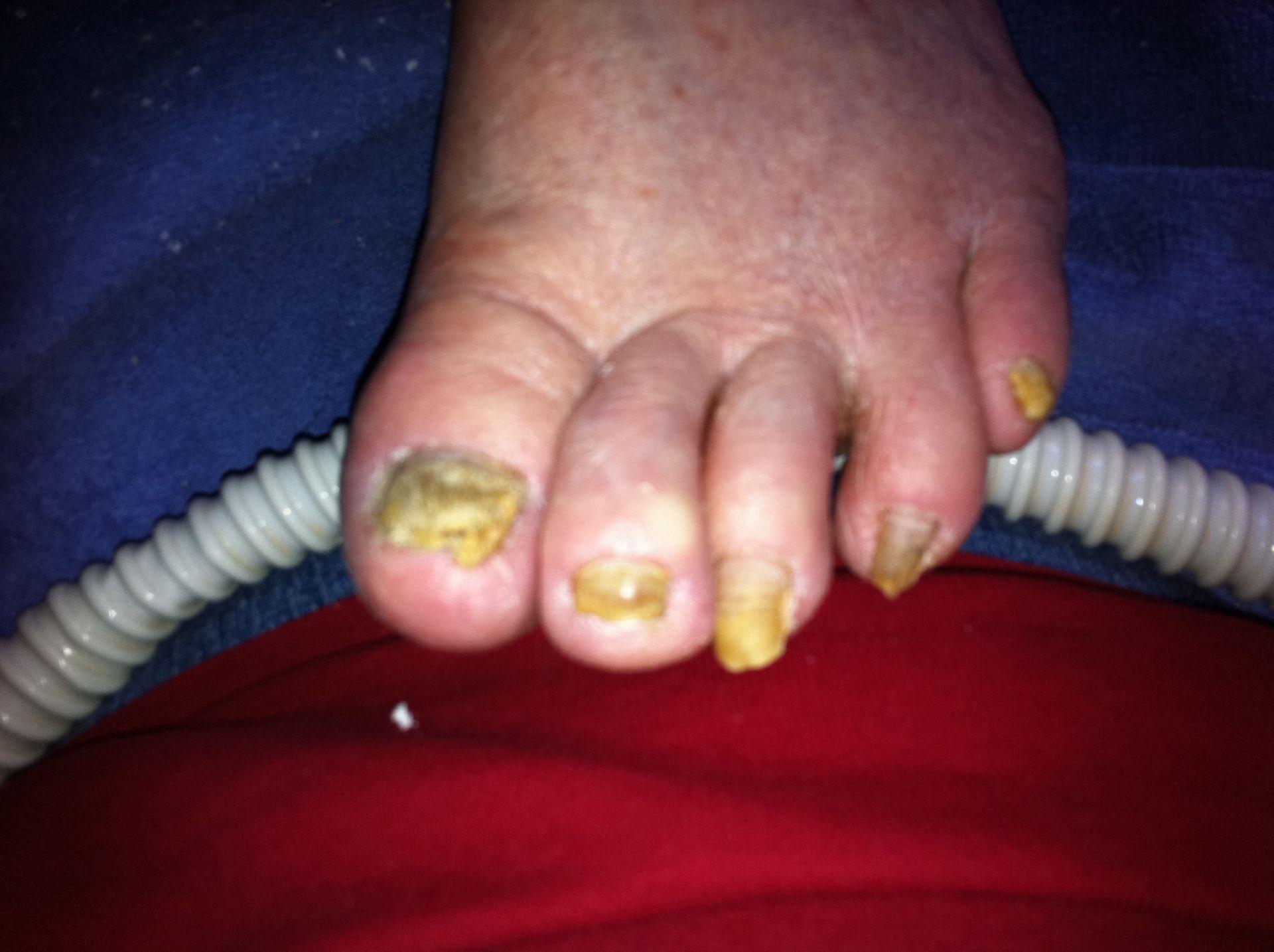 Suspected mycosis on the toenails