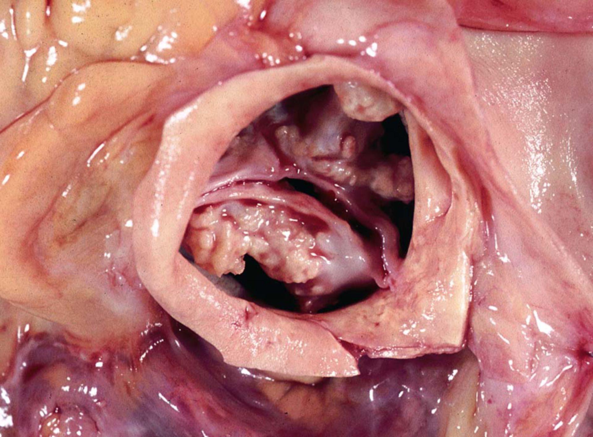 Stenosi valvolare aortica a causa di calcificazione di valvola bicuspide