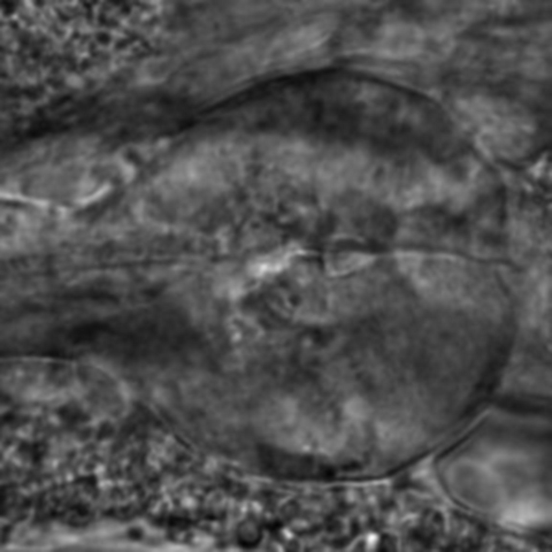 Caenorhabditis elegans - CIL:1974