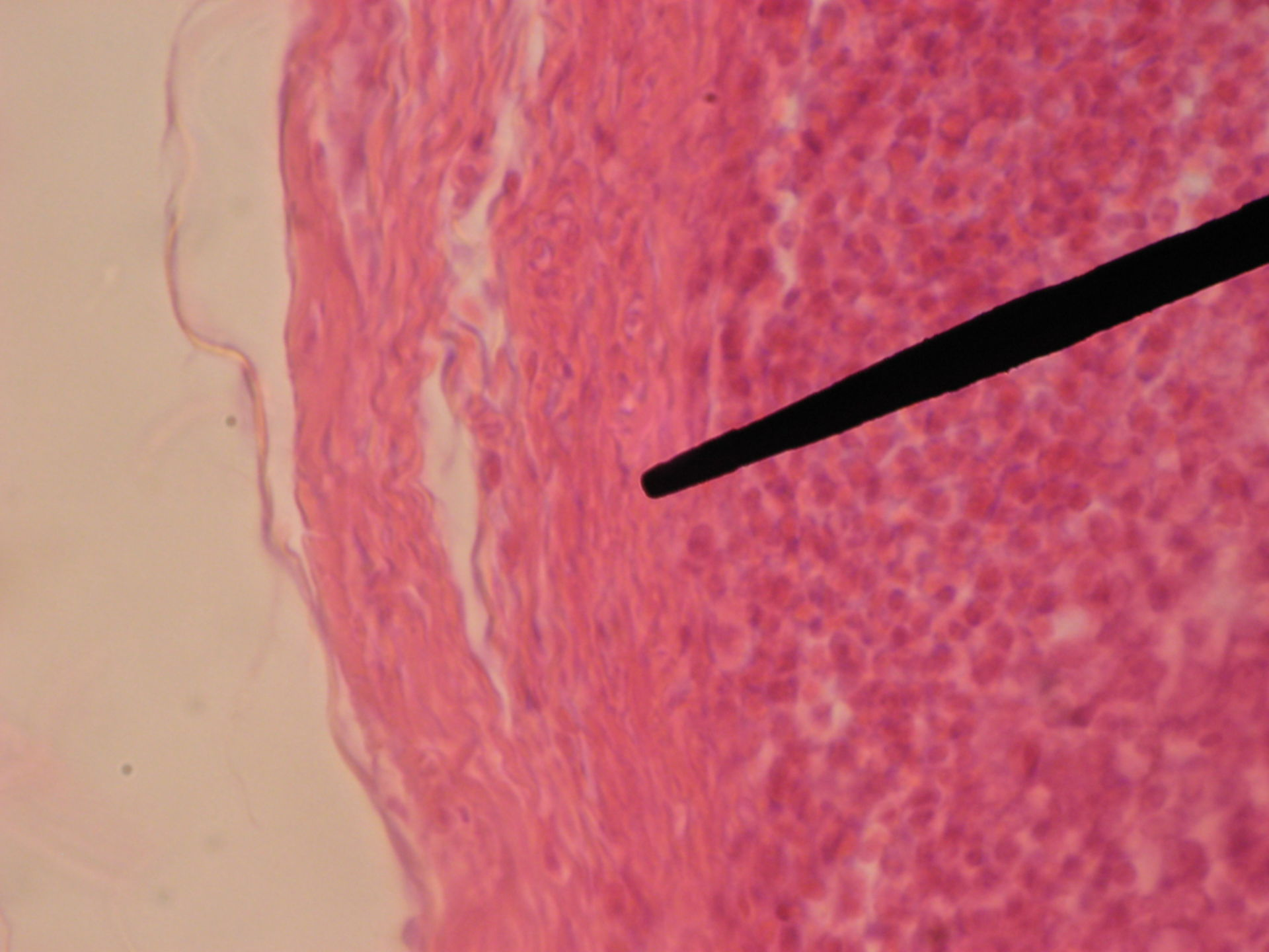 Lymphknoten des Rindes - Bindegewebskapsel