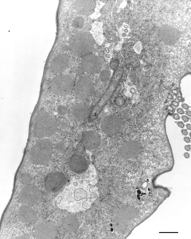 Euplotes sp. (Cytoplasmic symbiont) - CIL:12333
