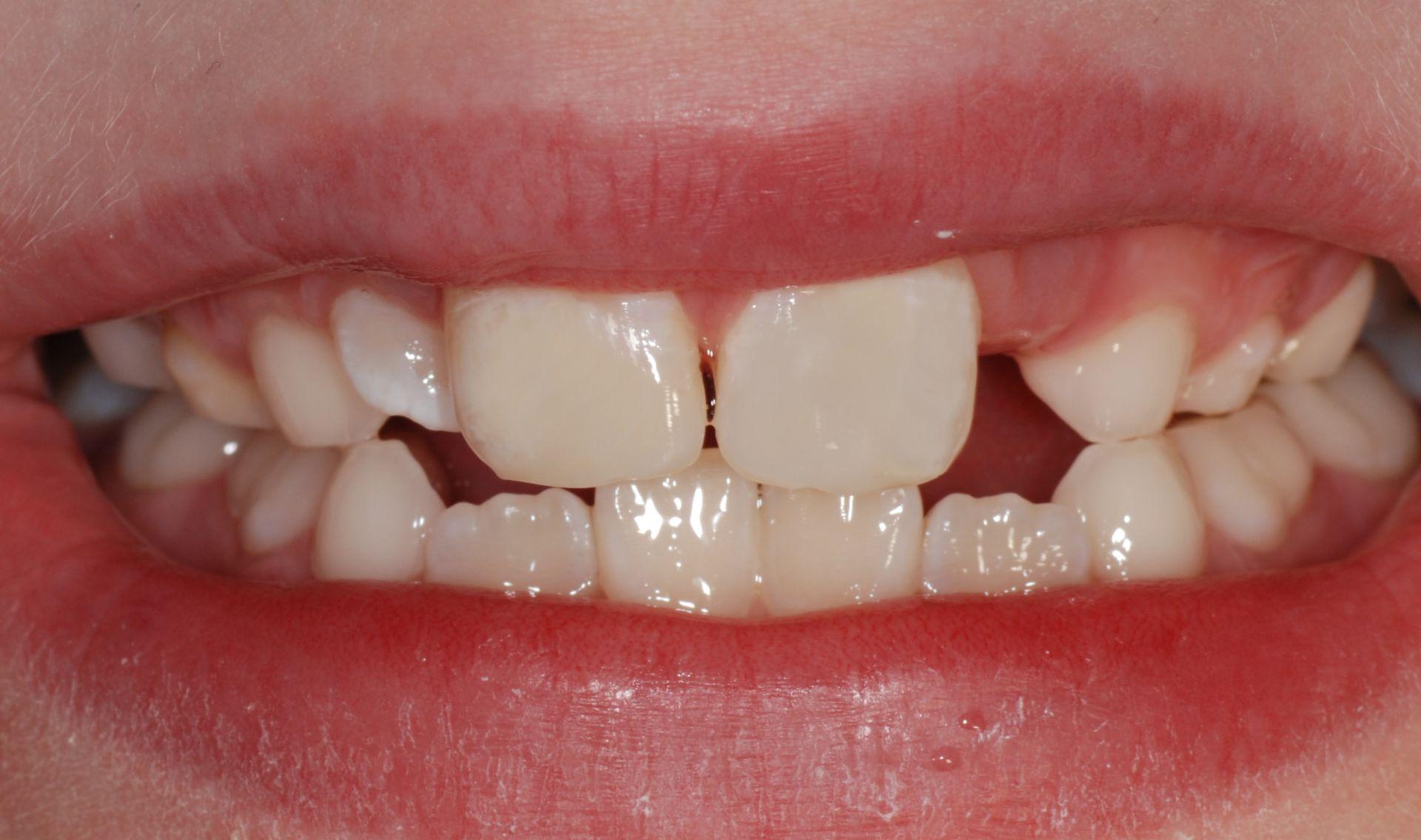 Zahnfraktur Nachher