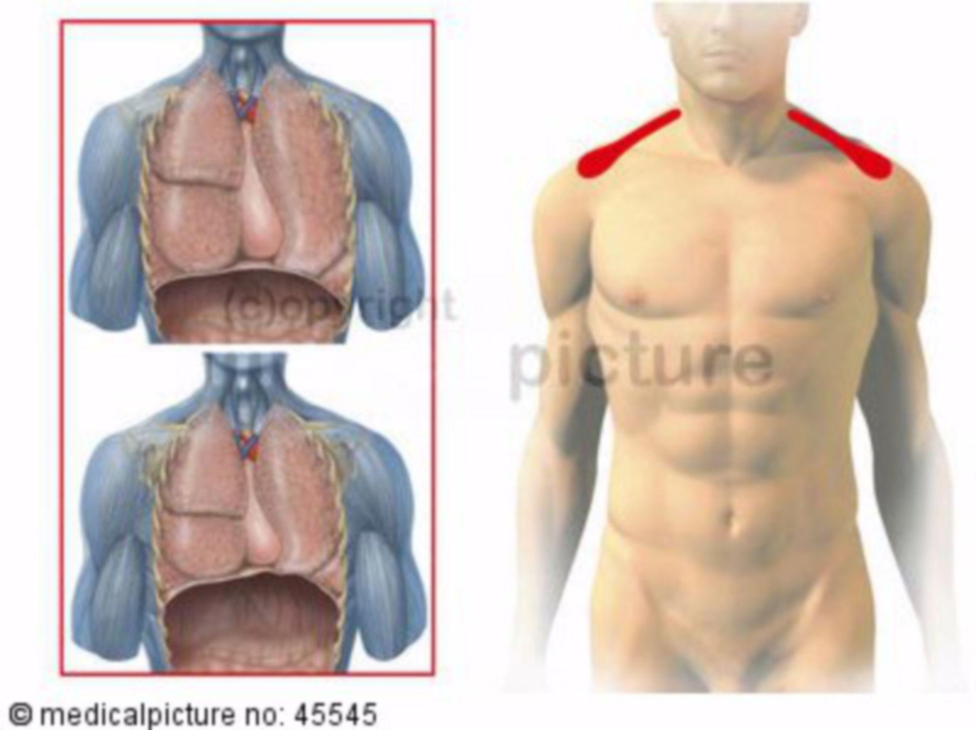 Diapgragm: zones of referred pain