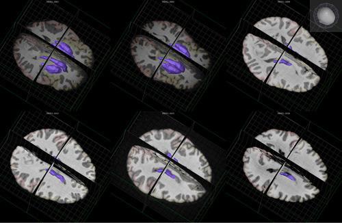 Neurowissenschaftler haben in den Basalganglien (farbig hervorgehoben) einen neuen Typus von Nervenzellen identifiziert. @ Allen Brain Explorer 2