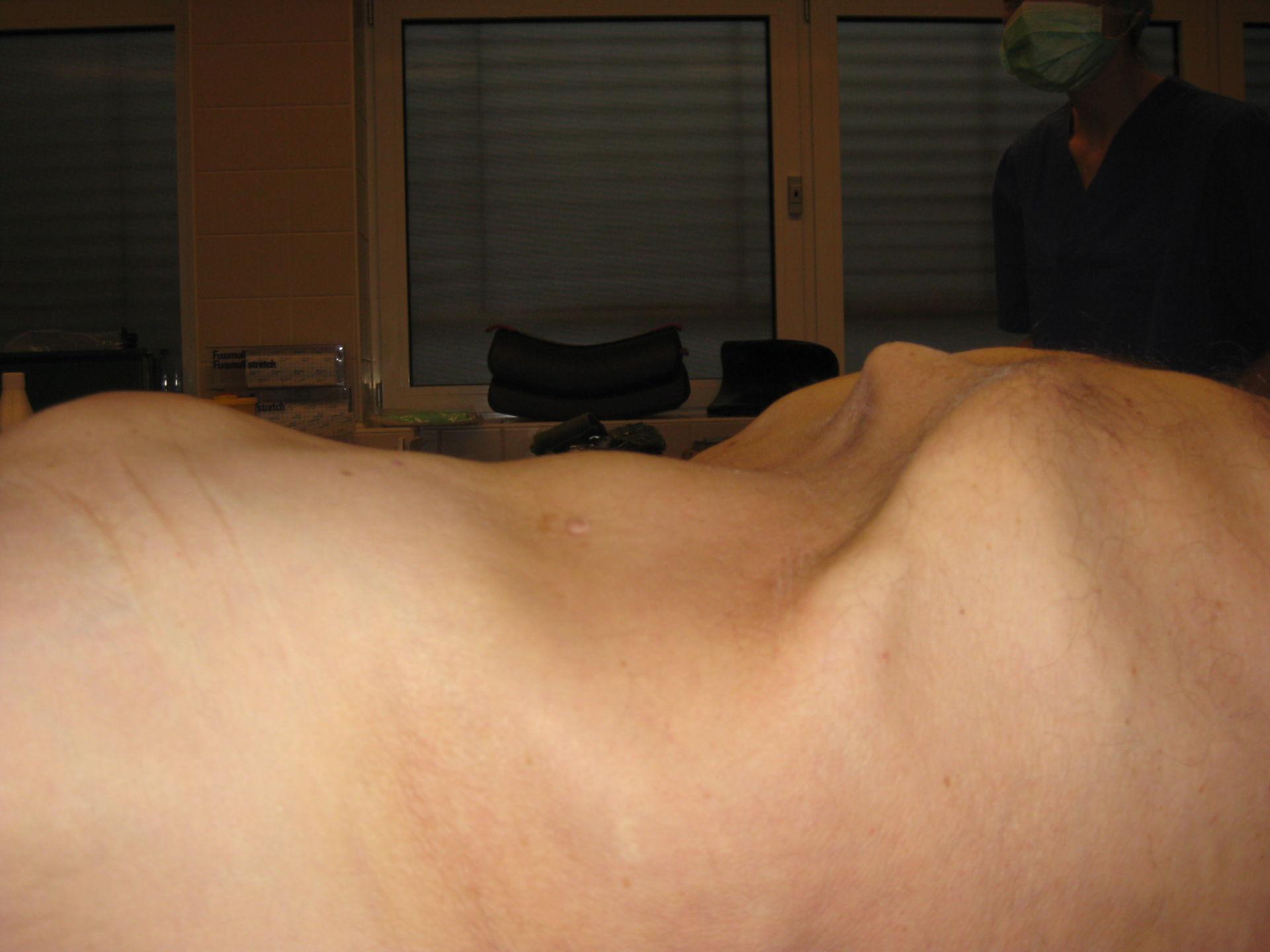 Bauchaortenaneurysma - durch die Bauchdecke erkennbar