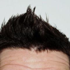 Finasterid Haare