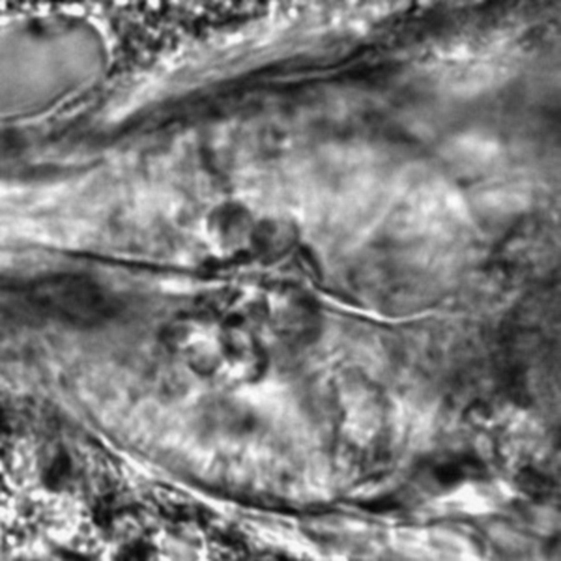 Caenorhabditis elegans - CIL:2261