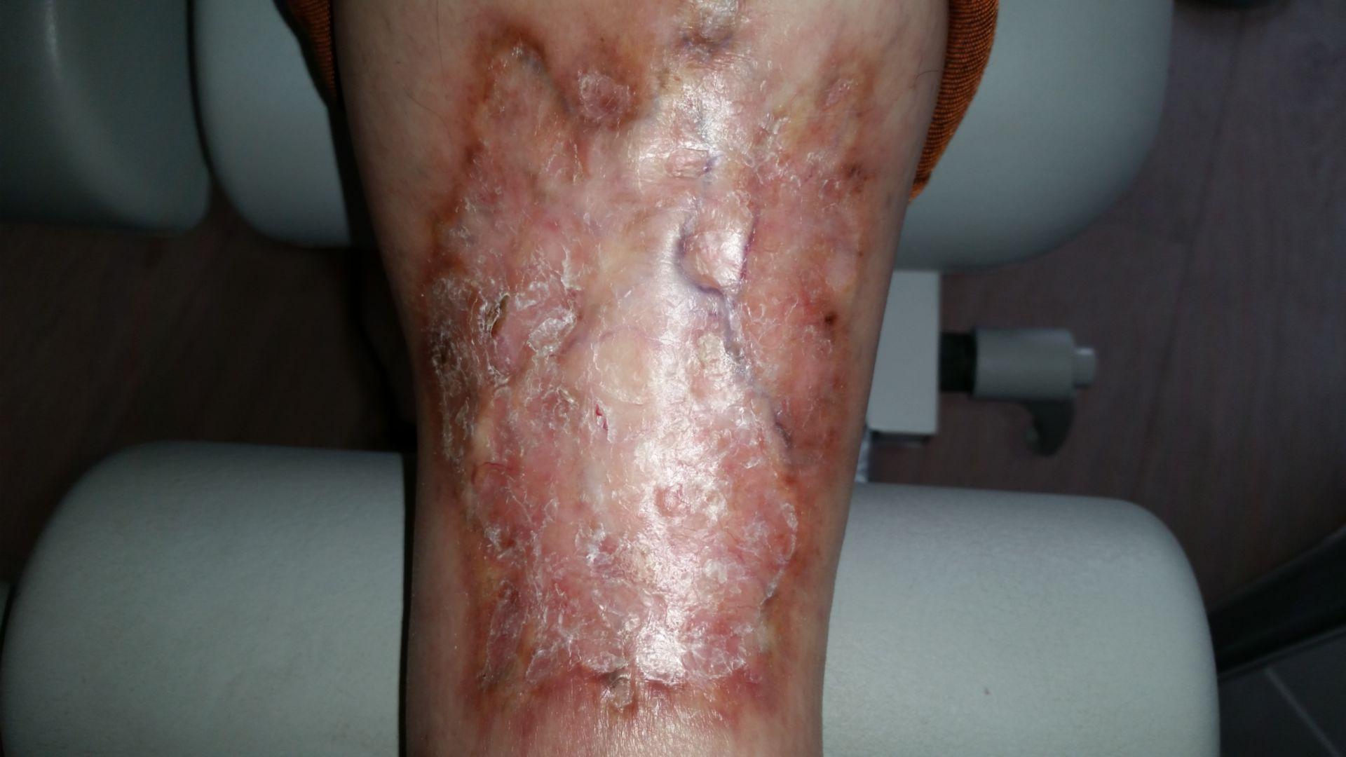 Necrobiosis lipoidoca diabeticorum