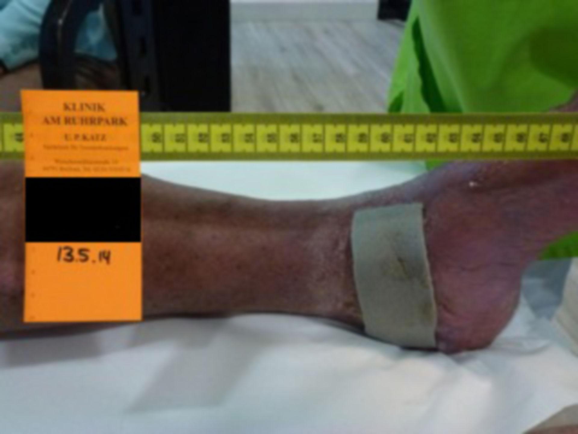 Úlcera de la pierna 10513 - abierta por 2 años