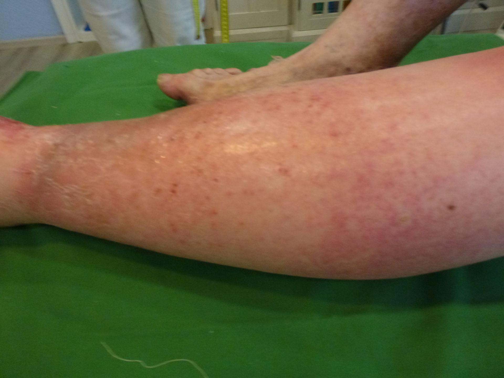 Úlcera de la pierna - Cerrada dentro de 72 horas (7)