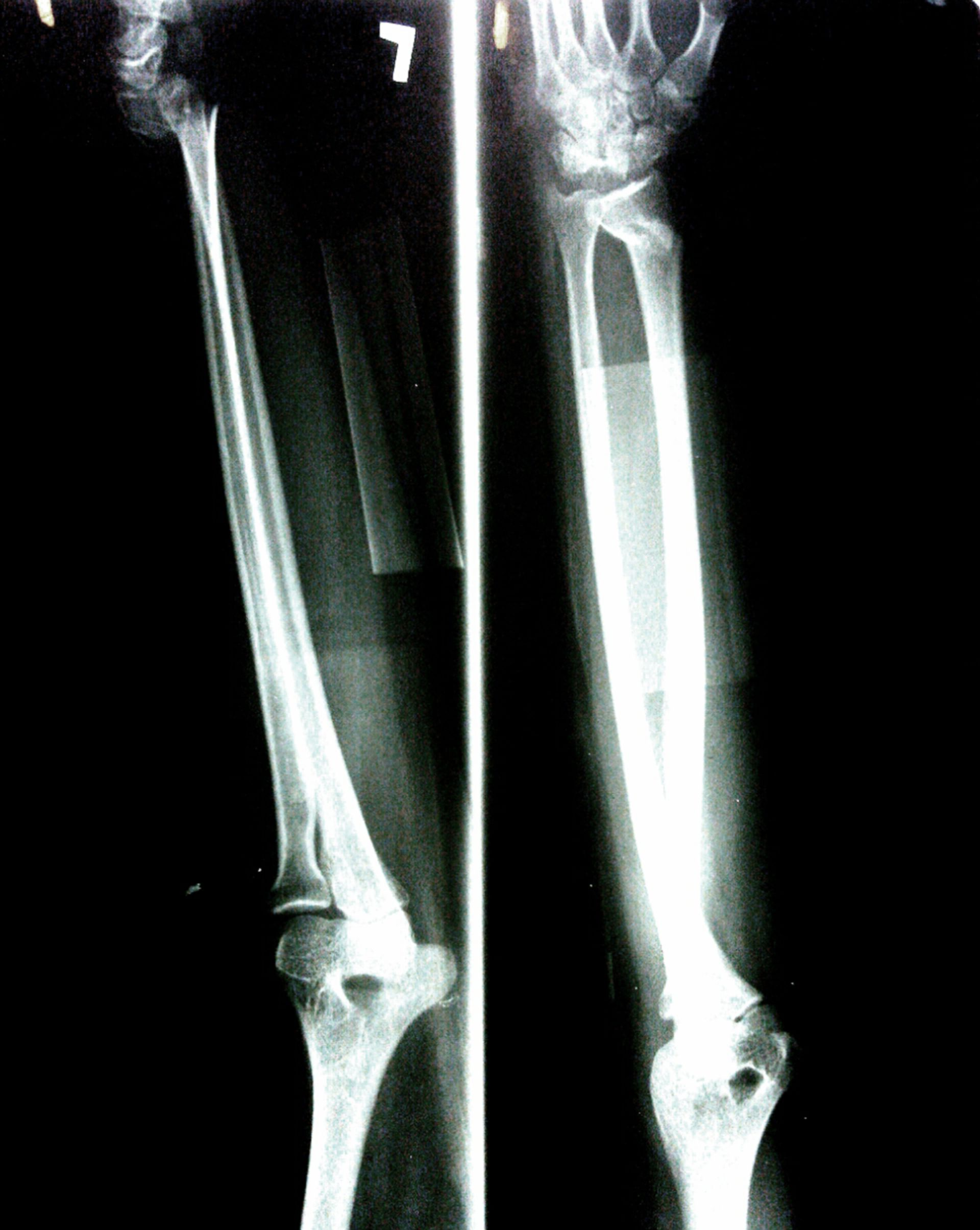 Distal radius fracture (2)