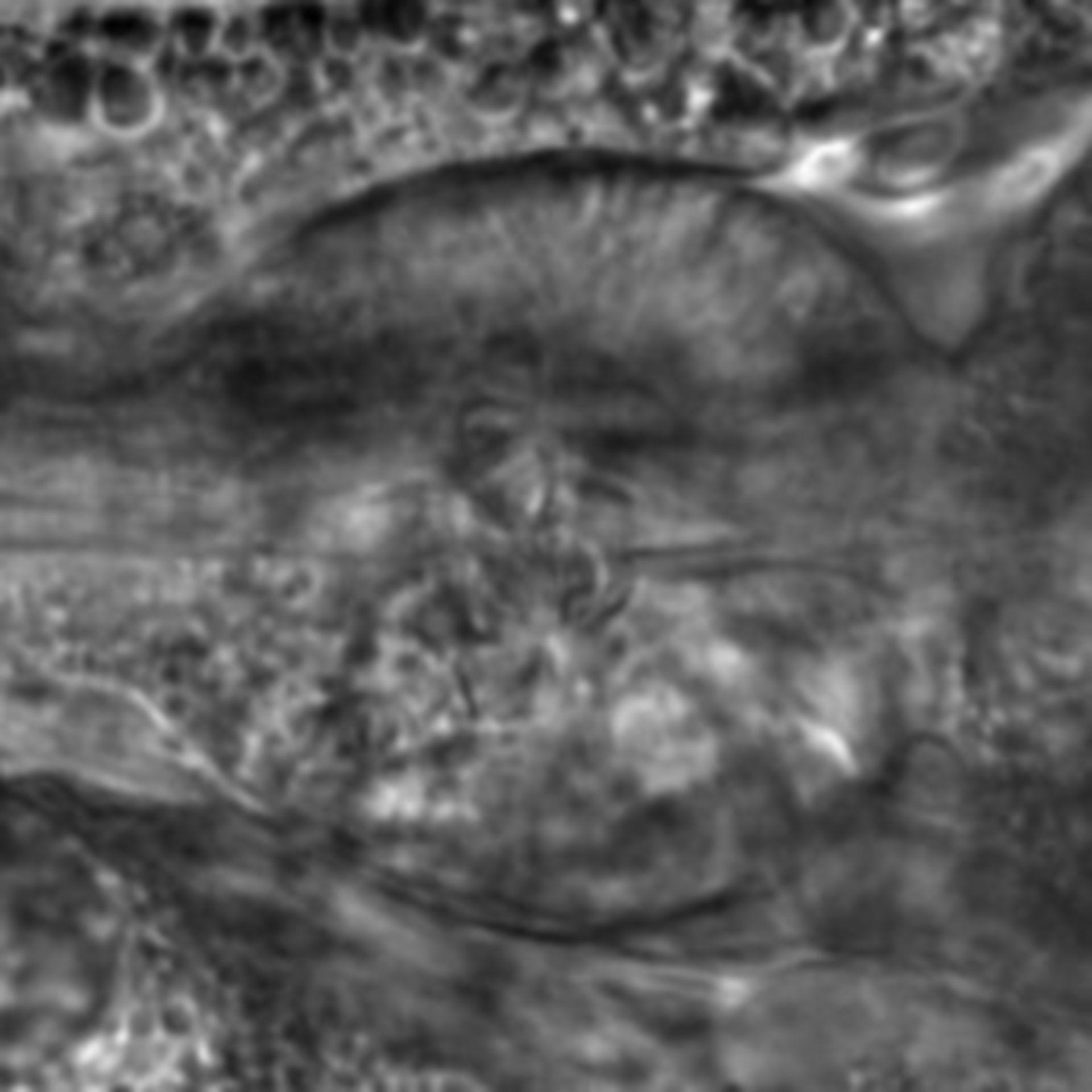 Caenorhabditis elegans - CIL:2132