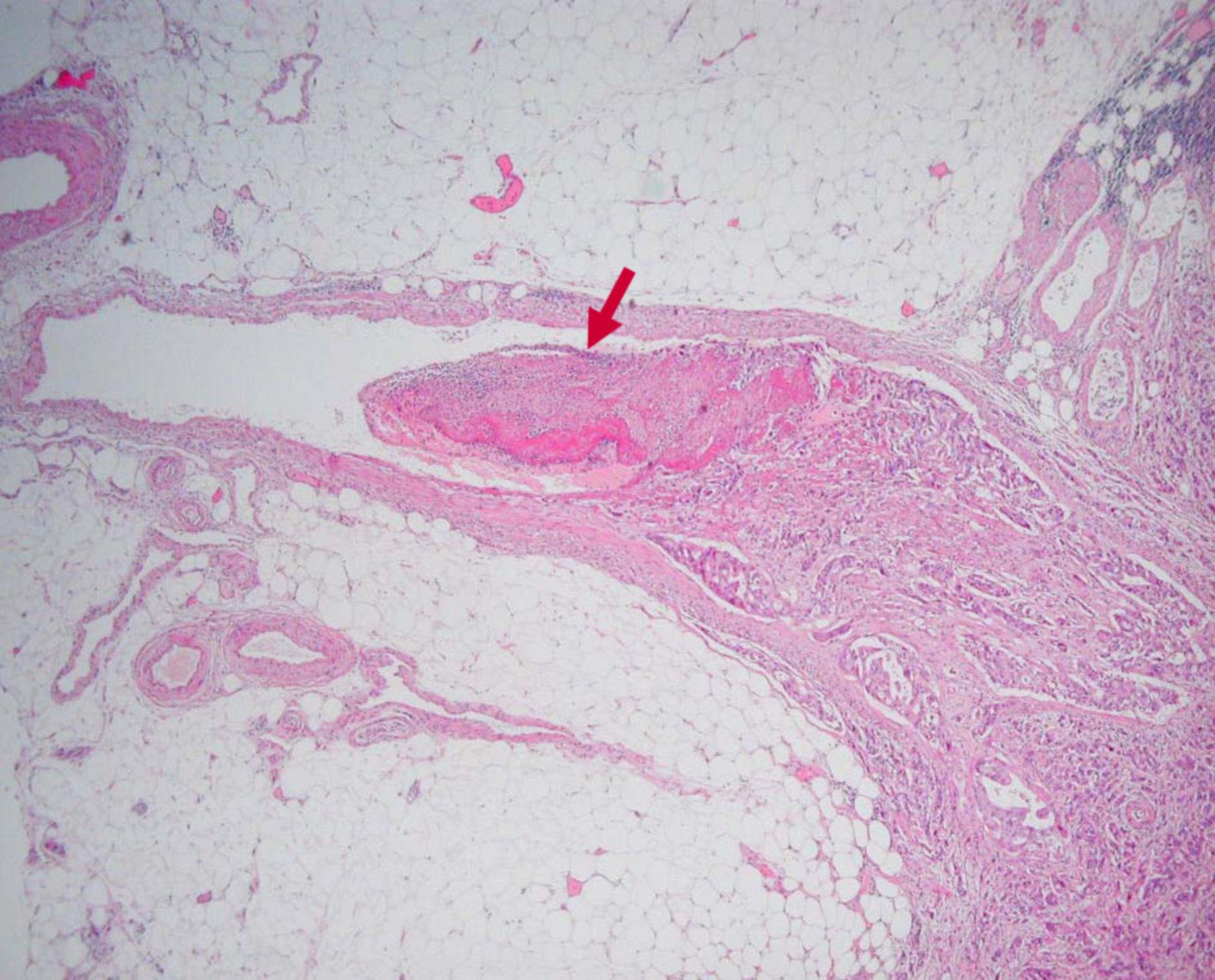 Colangiocarcinoma del fegato