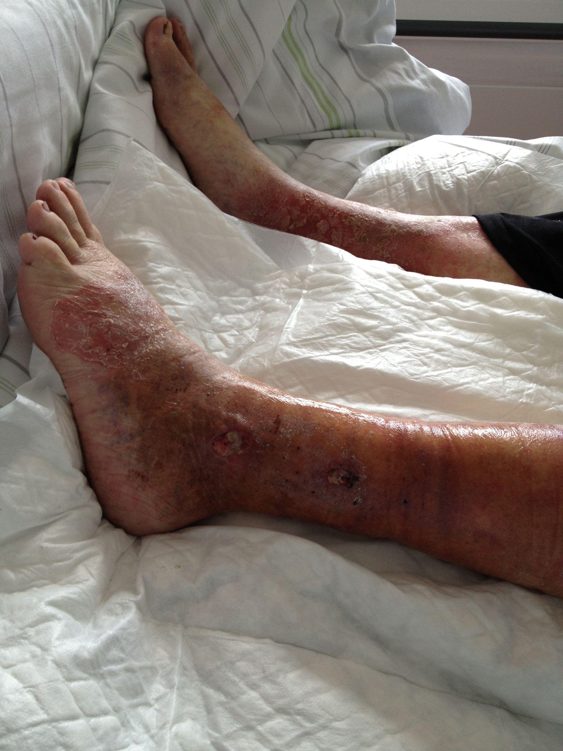 Emorragia delle vene varicose ed ischemia