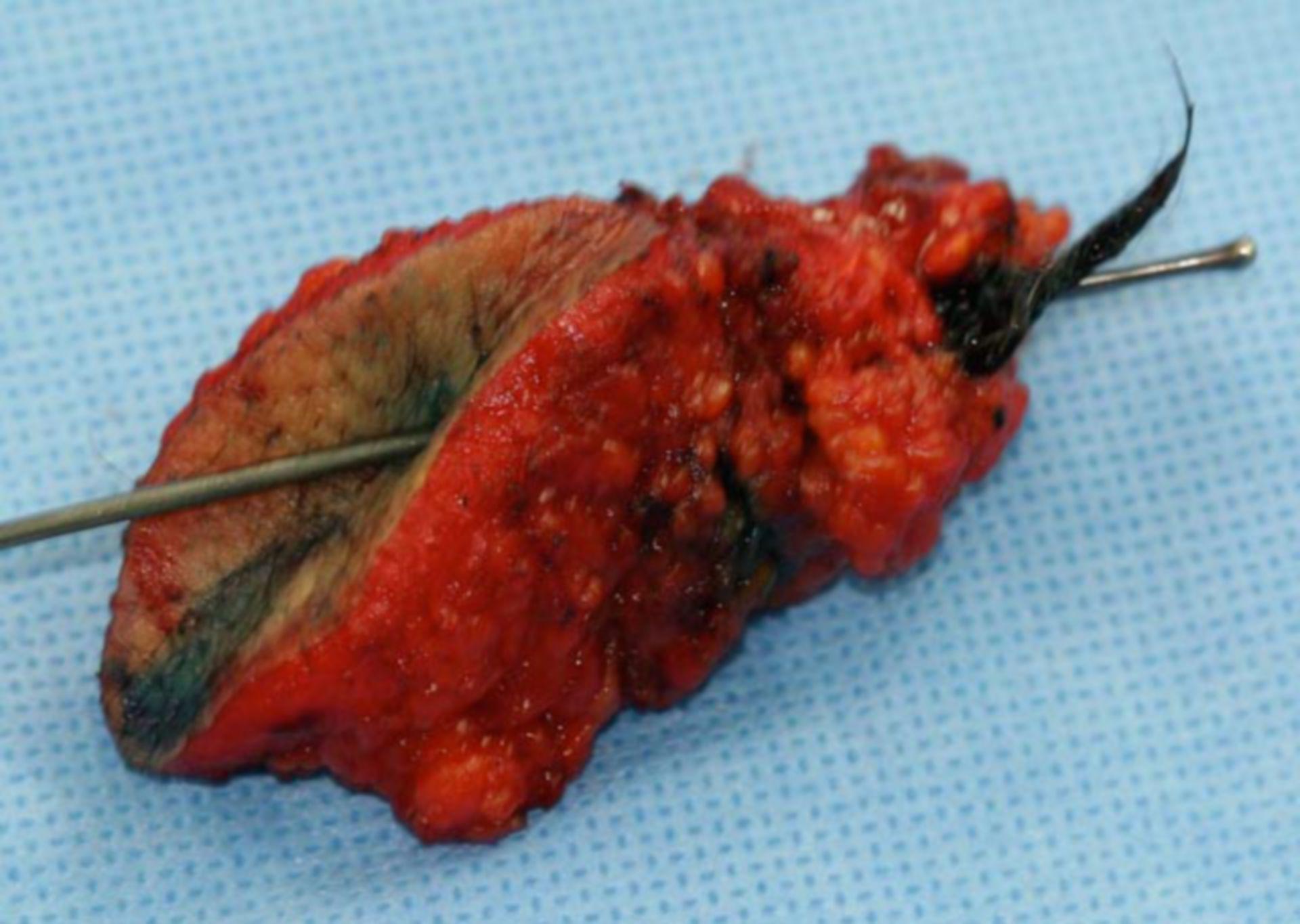 Preparación de la escisión después de una fístula coccígea 1