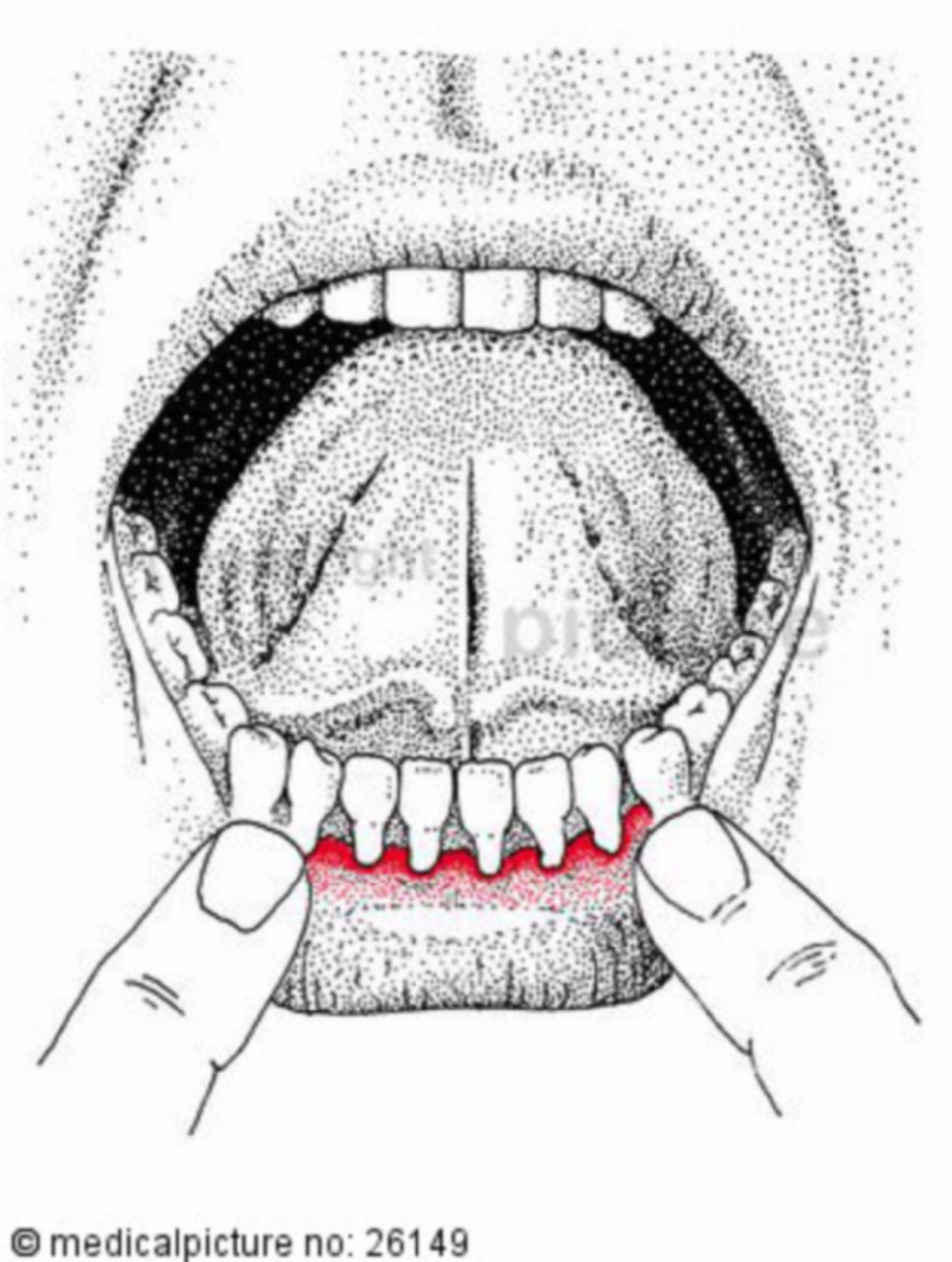 L'infiammazione delle gengive (gengivite)